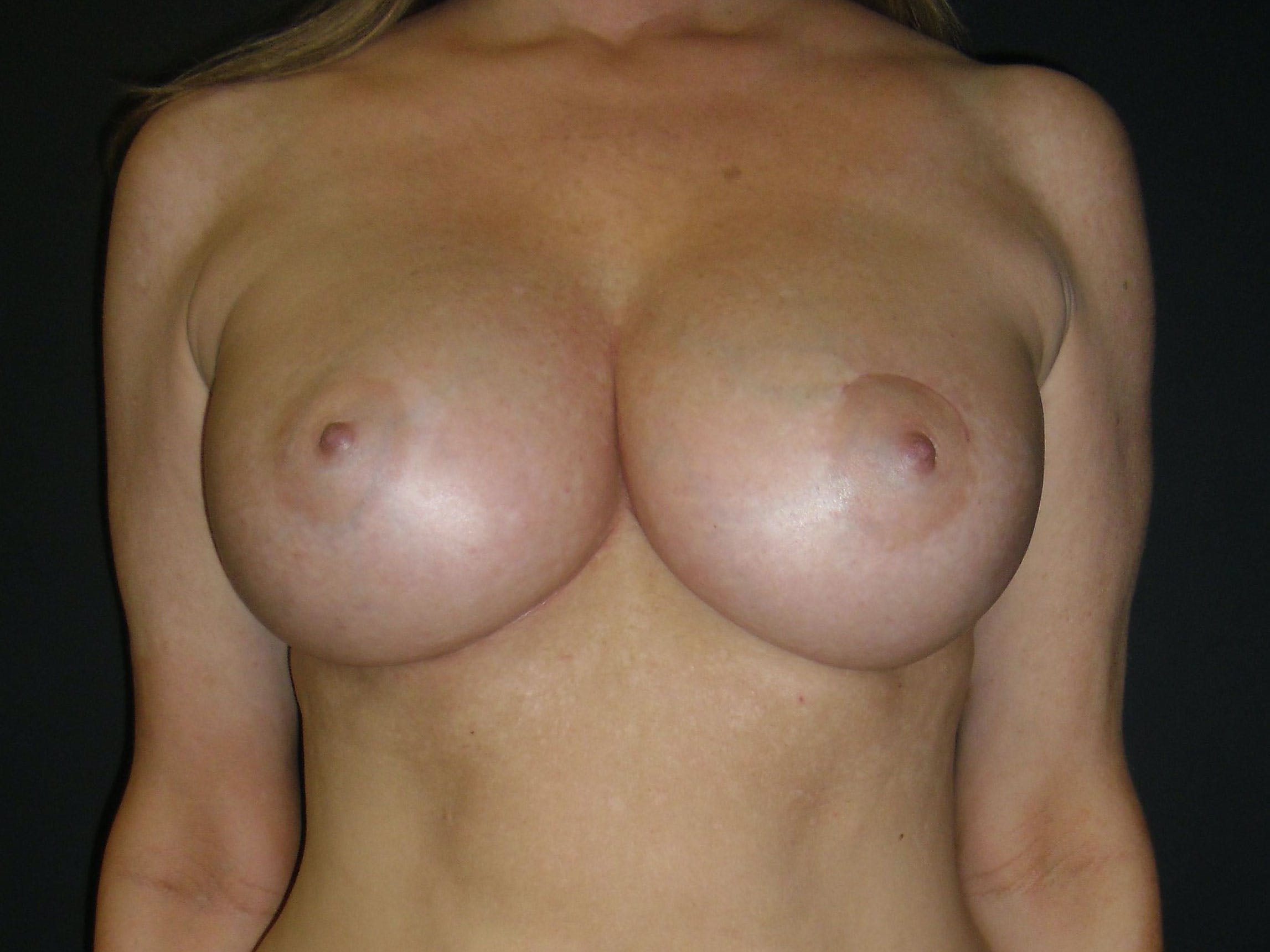 Breast Augmentation Gallery - Patient 56397881 - Image 2