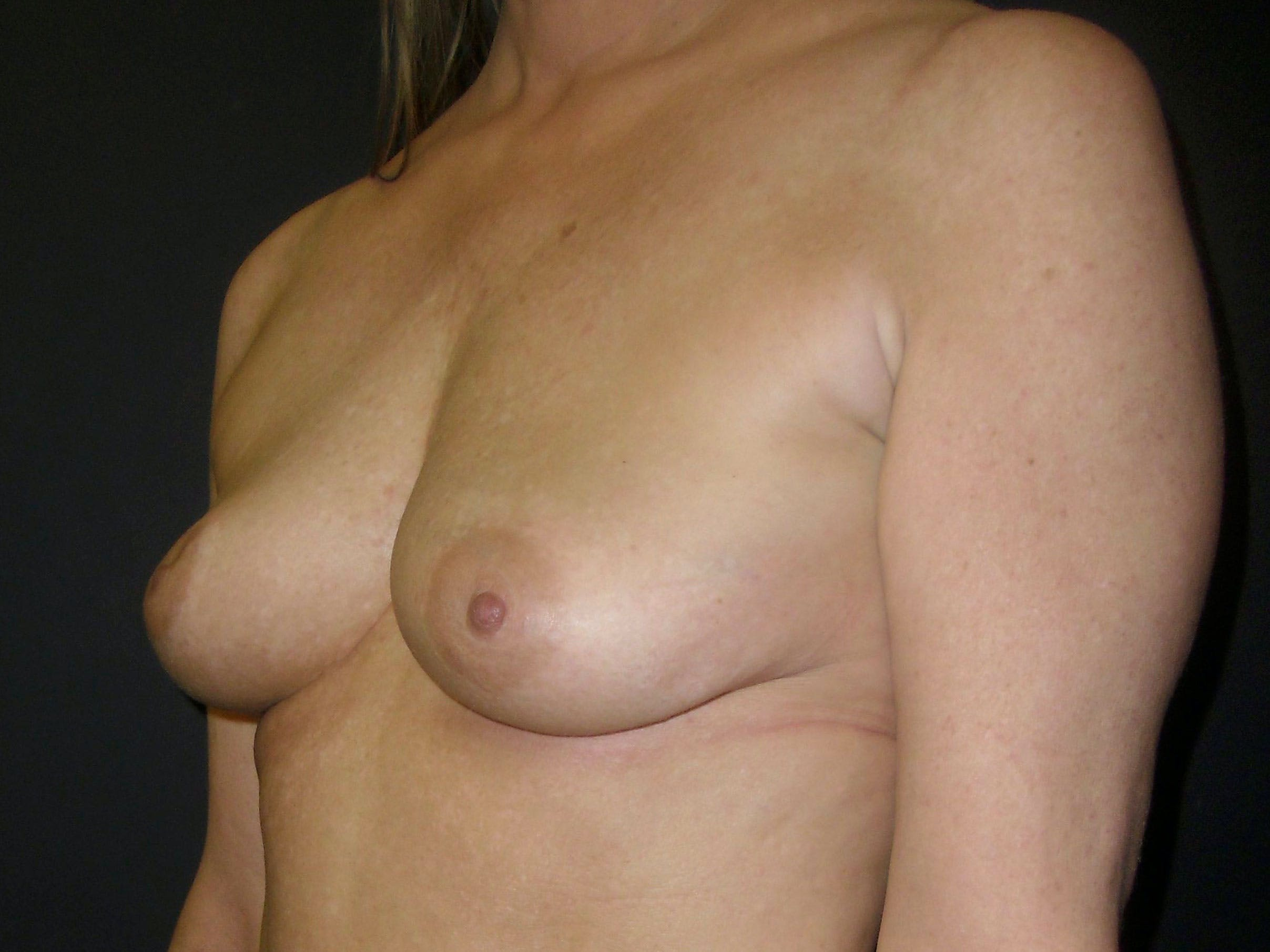Breast Augmentation Gallery - Patient 56397881 - Image 3
