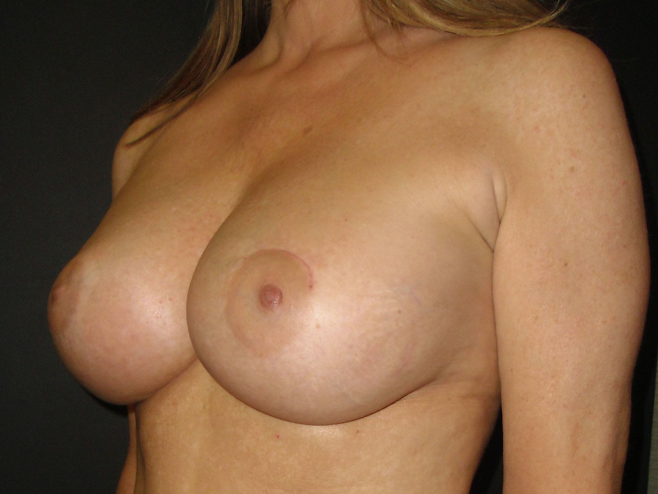 Breast Augmentation Gallery - Patient 56397881 - Image 4