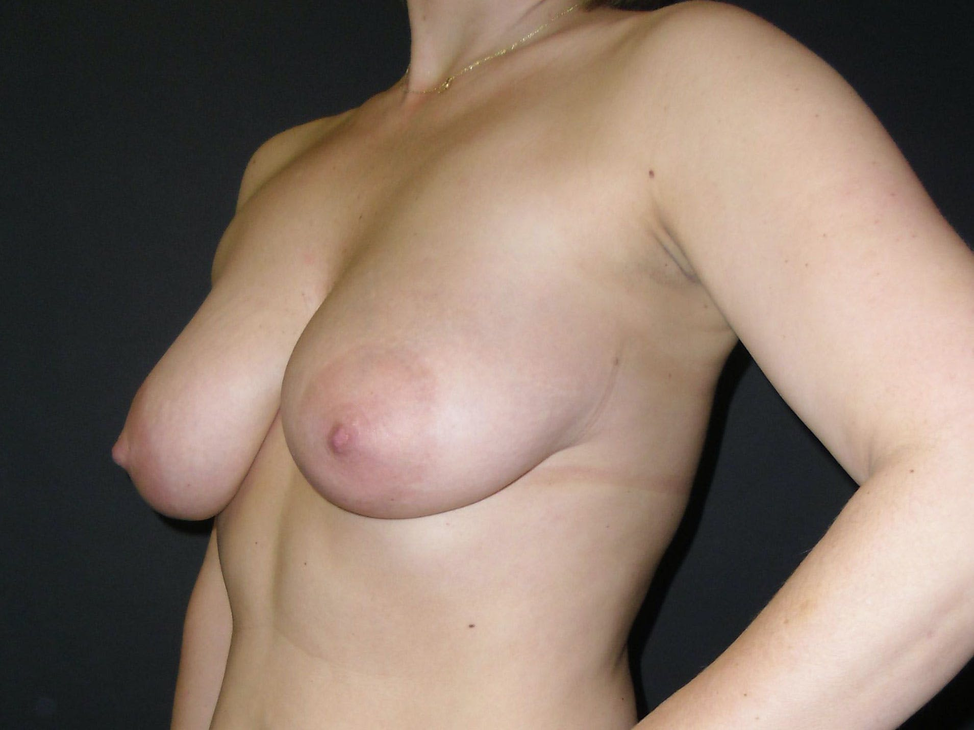 Breast Lift Gallery - Patient 56397927 - Image 1