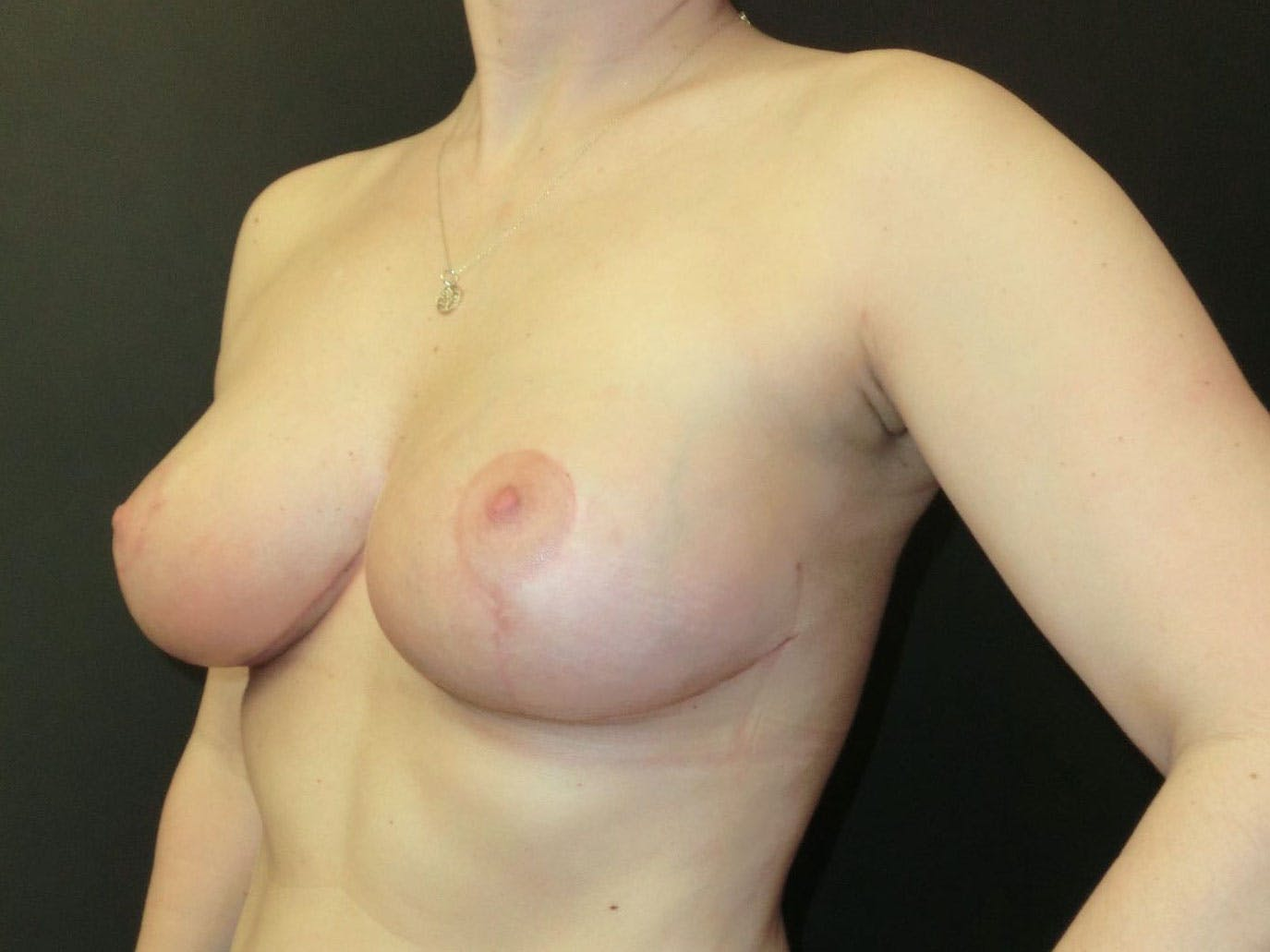 Breast Lift Gallery - Patient 56397927 - Image 2