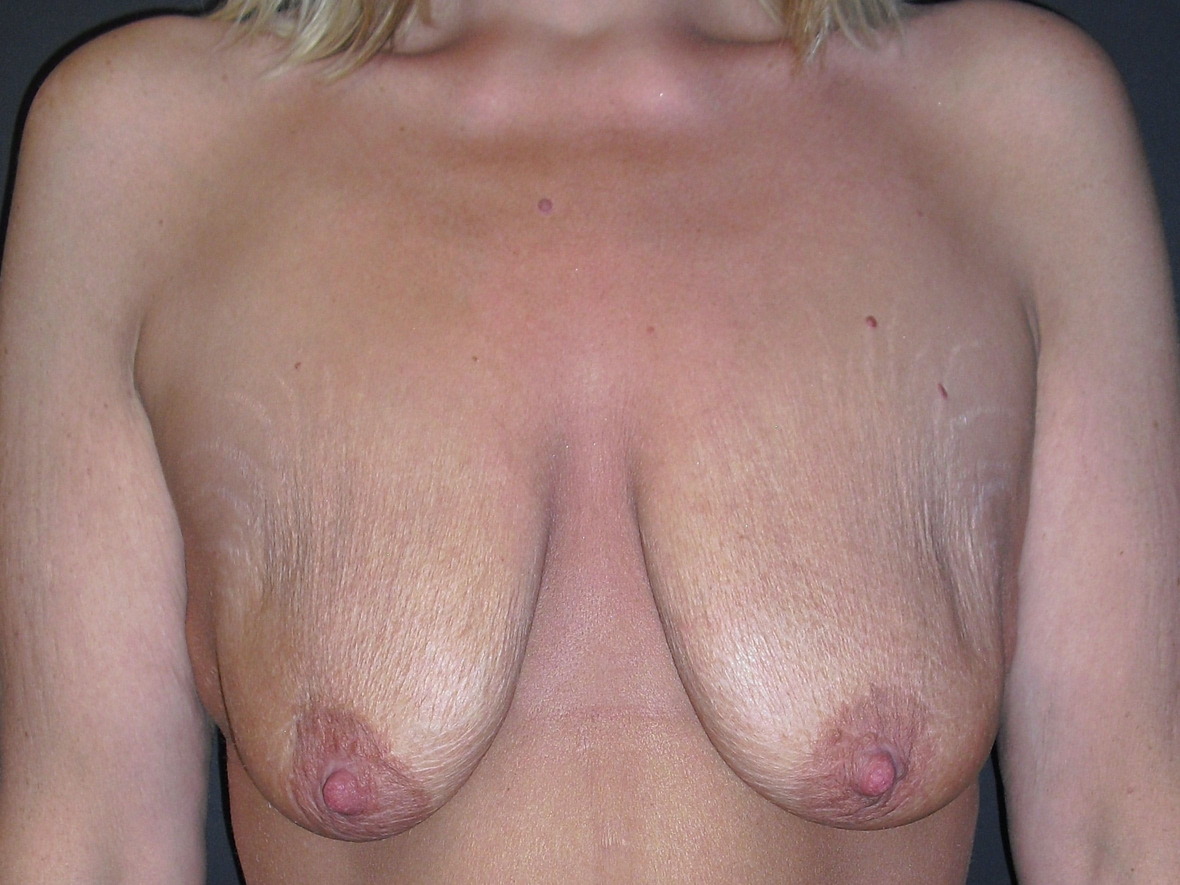 Breast Lift Gallery - Patient 56397928 - Image 1