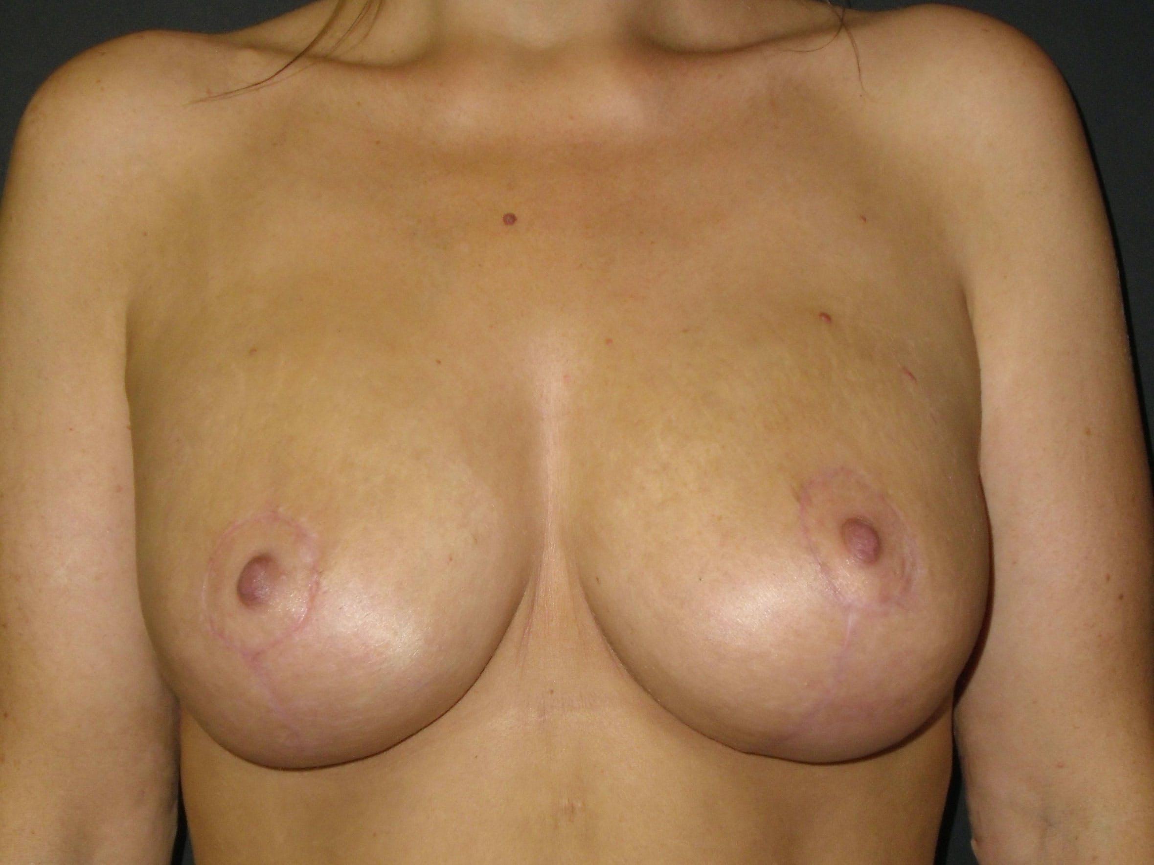 Breast Lift Gallery - Patient 56397928 - Image 2