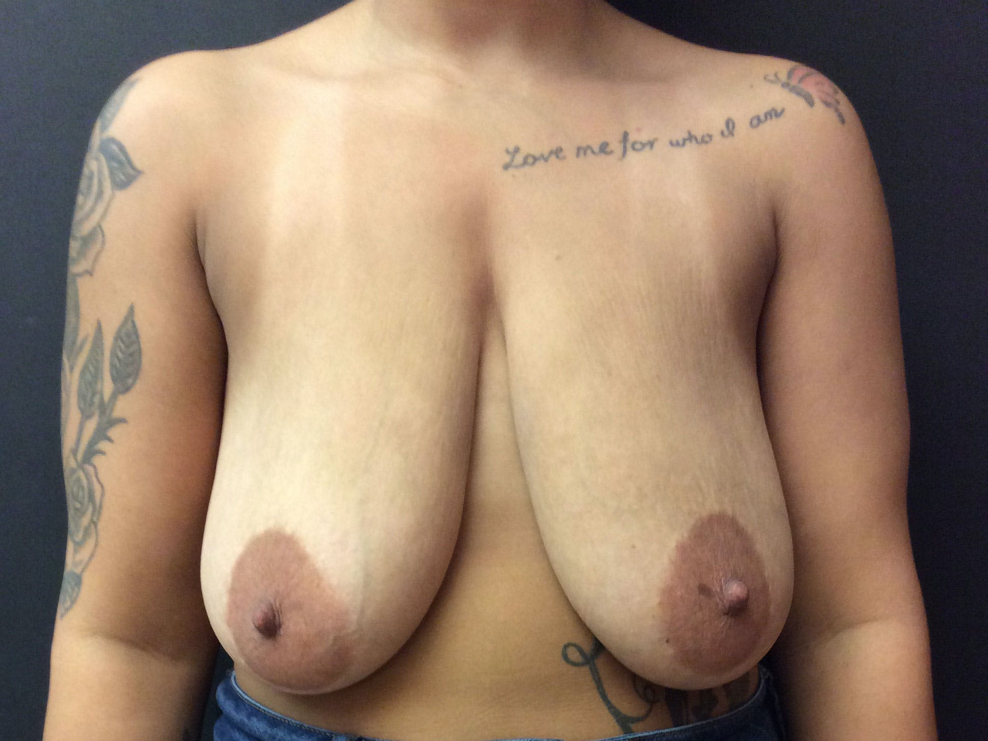 Breast Lift Gallery - Patient 56397929 - Image 1