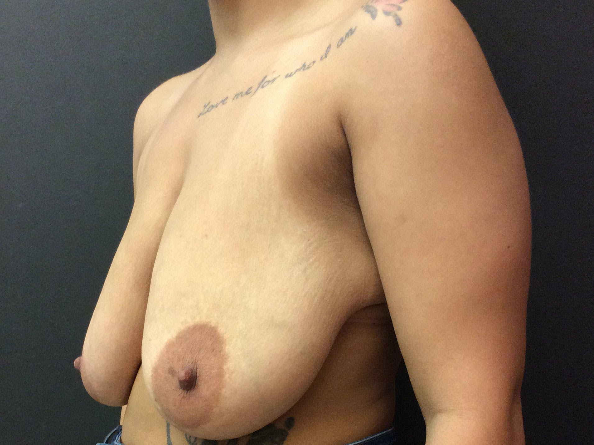 Breast Lift Gallery - Patient 56397929 - Image 3