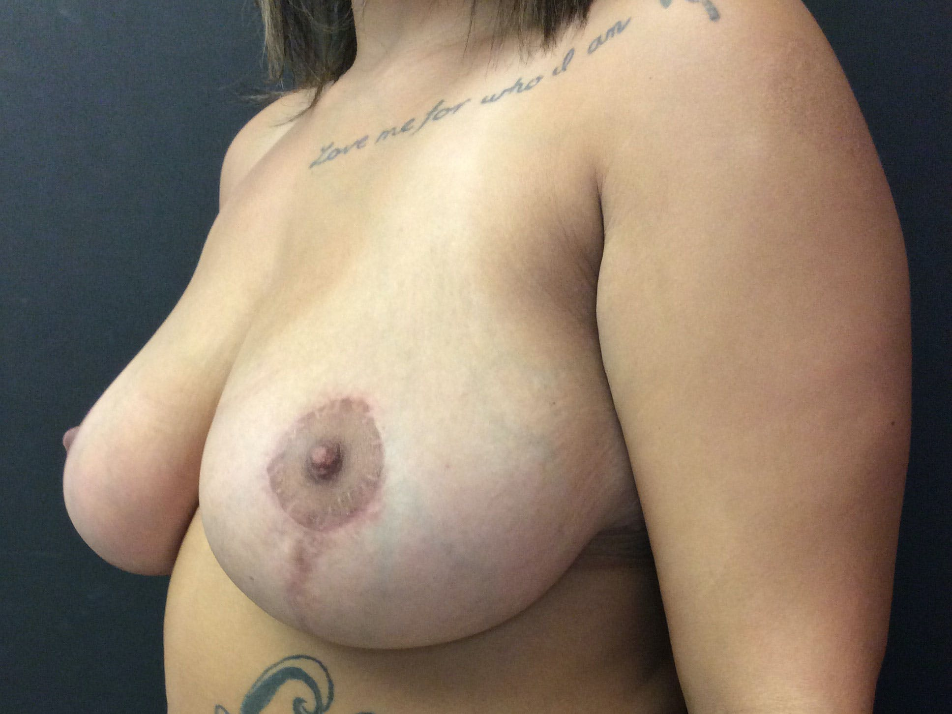 Breast Lift Gallery - Patient 56397929 - Image 4