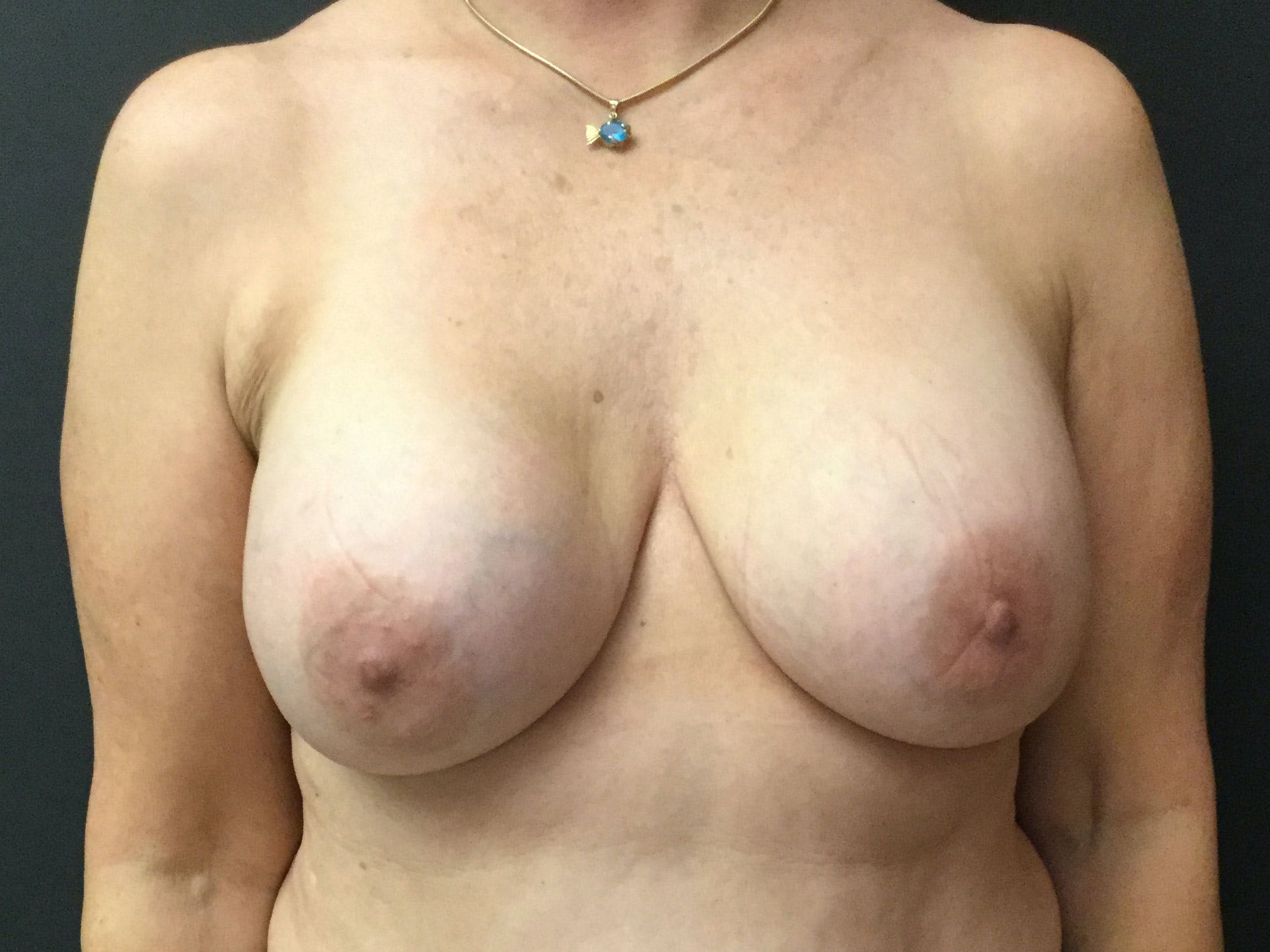 Breast Revision Gallery - Patient 56397932 - Image 1