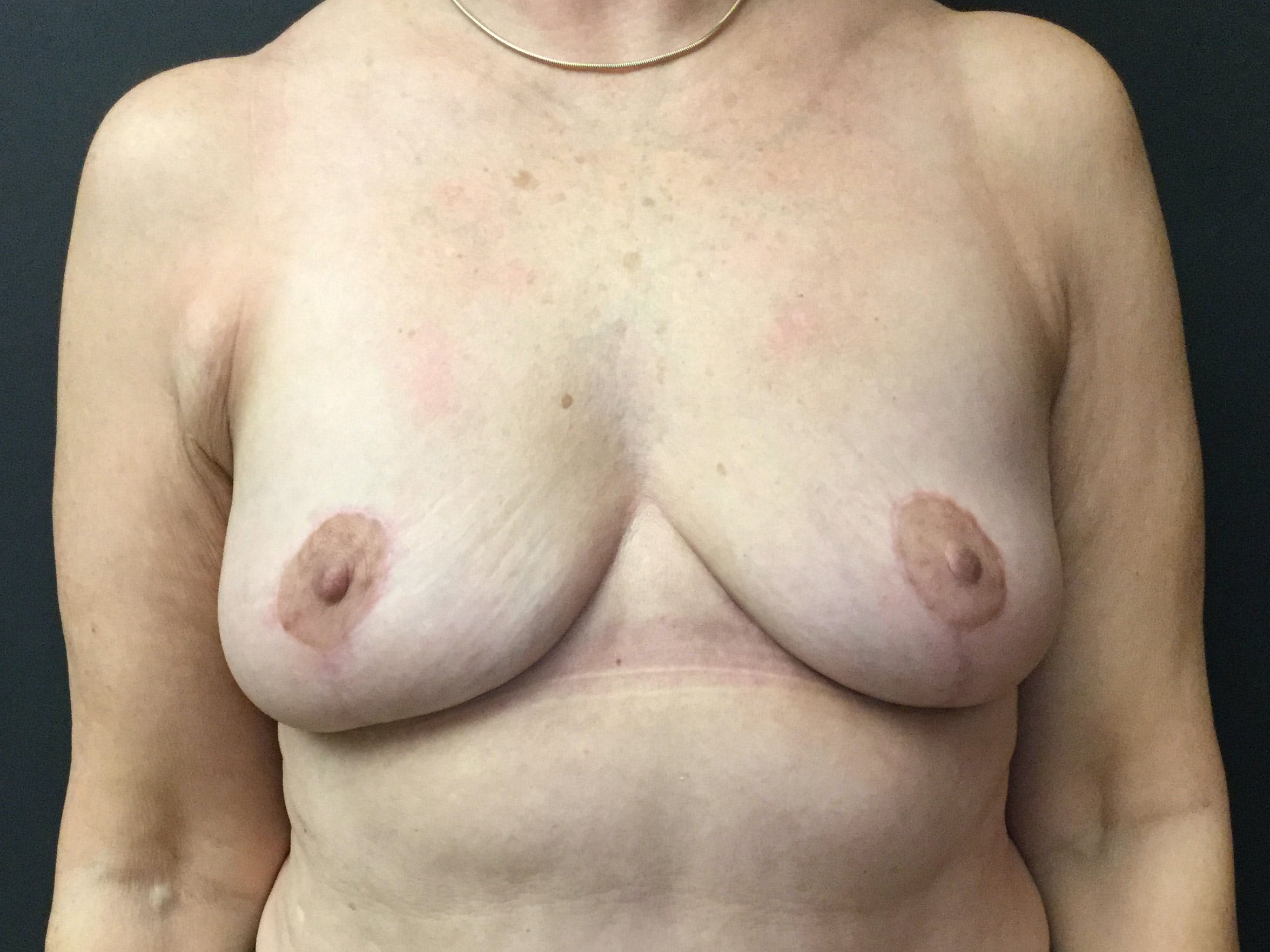 Breast Revision Gallery - Patient 56397932 - Image 2