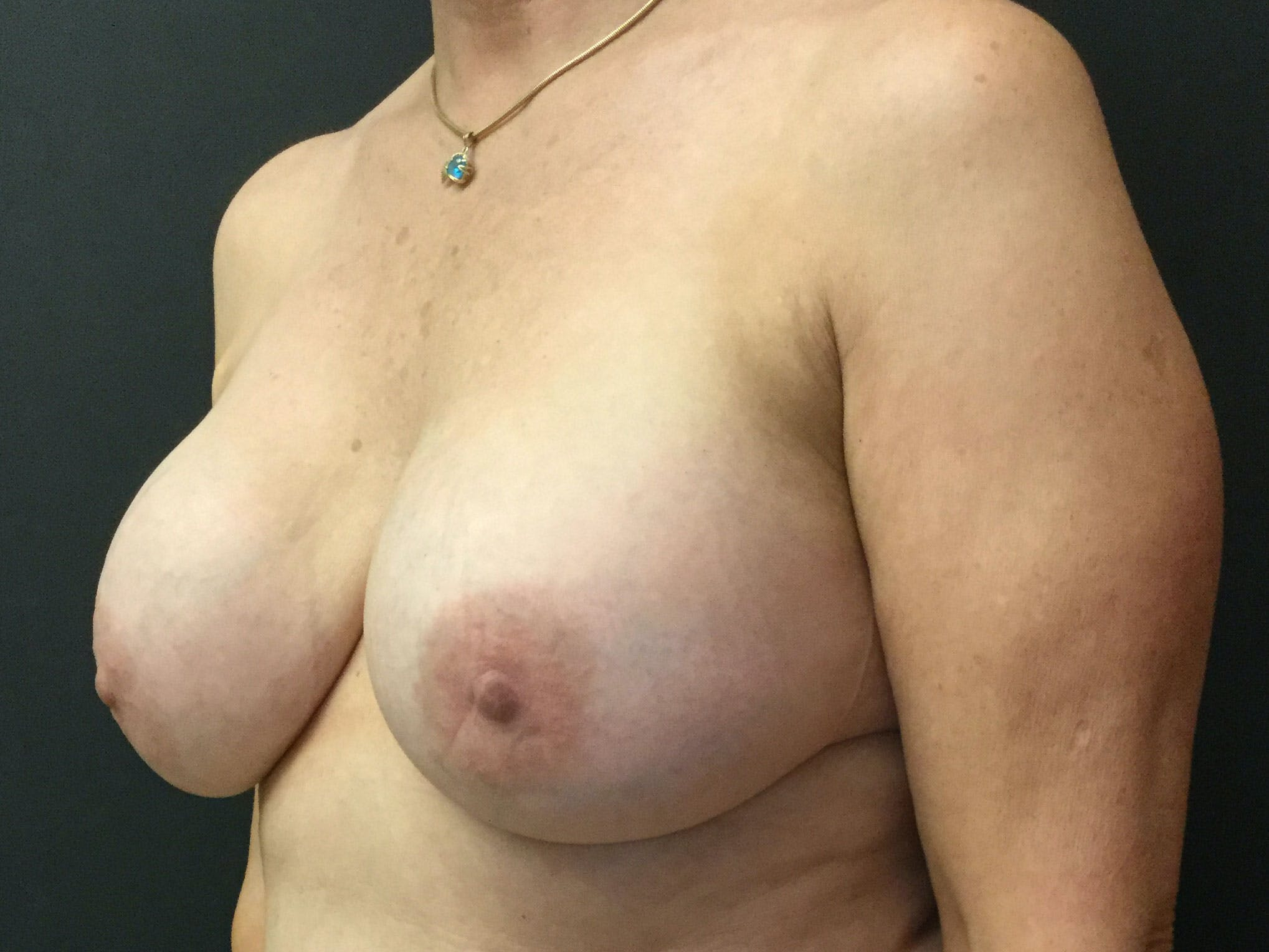 Breast Revision Gallery - Patient 56397932 - Image 3