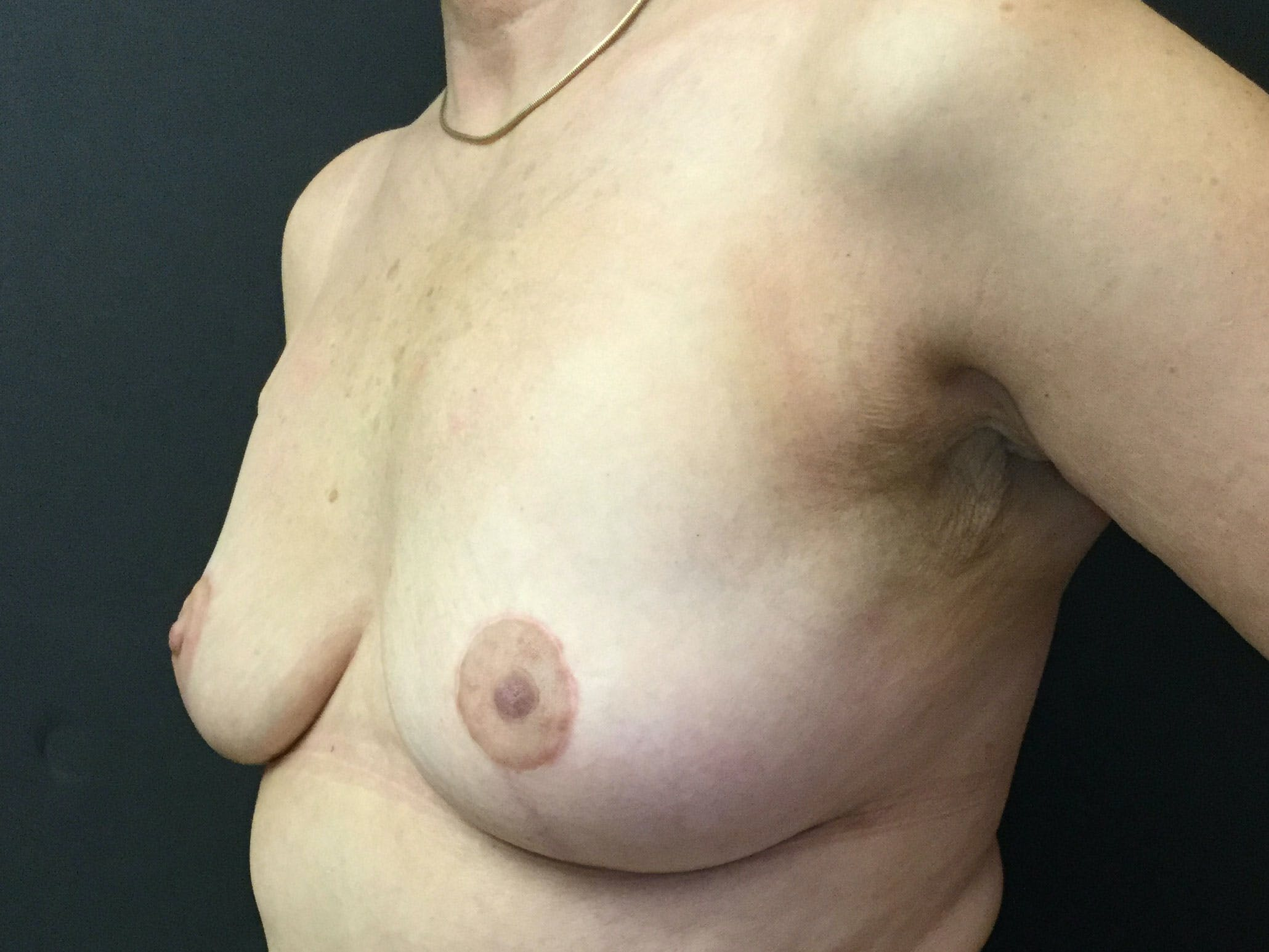 Breast Revision Gallery - Patient 56397932 - Image 4