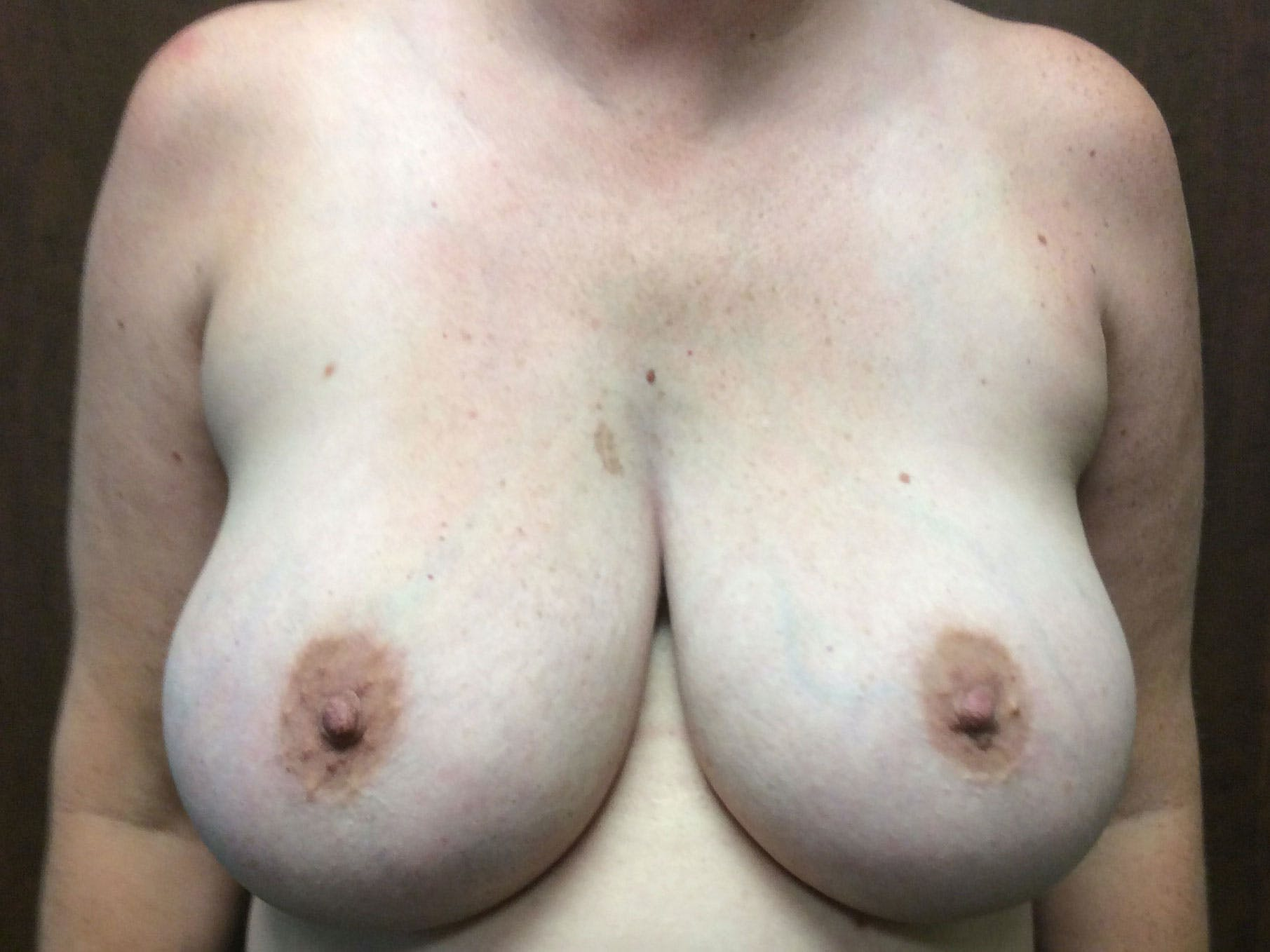 Breast Reduction Gallery - Patient 56397935 - Image 1