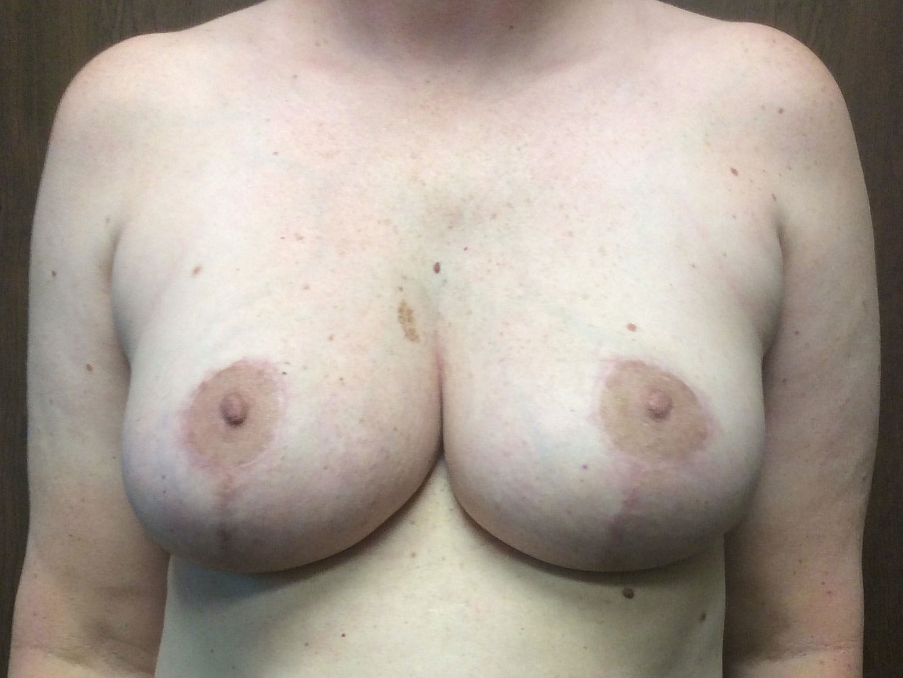 Breast Reduction Gallery - Patient 56397935 - Image 2