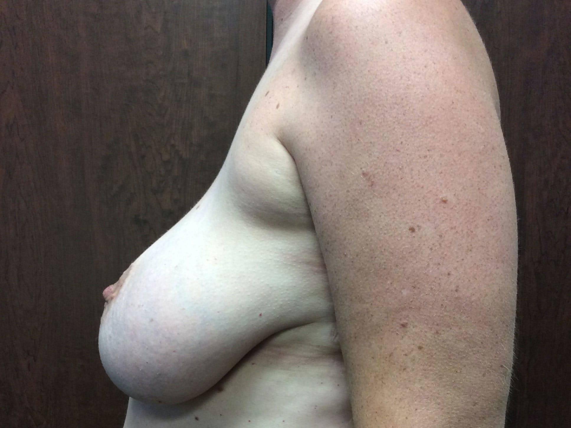 Breast Reduction Gallery - Patient 56397935 - Image 3