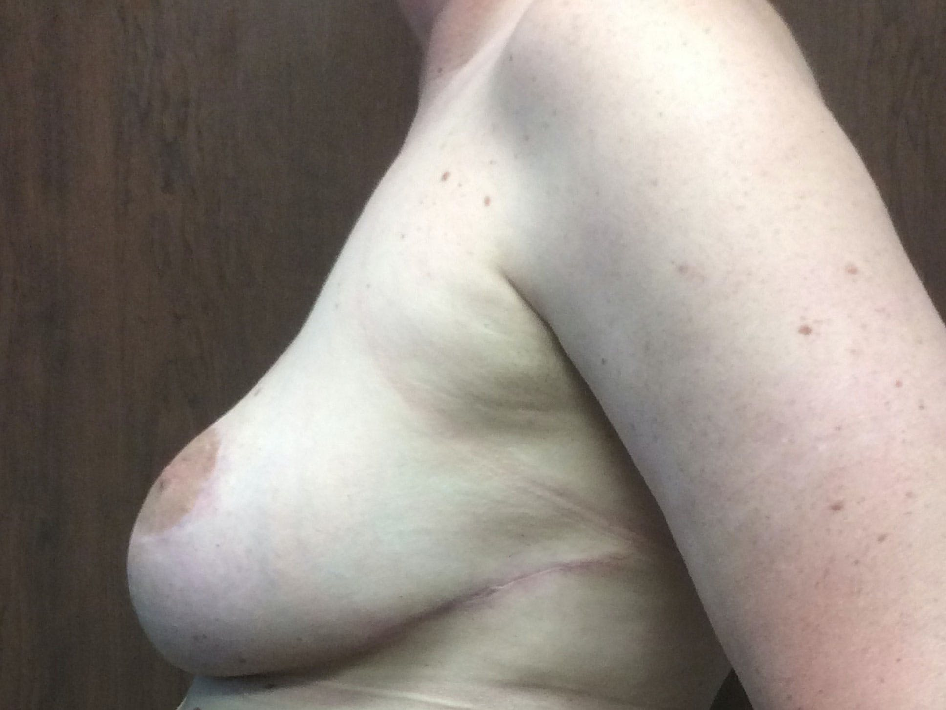 Breast Reduction Gallery - Patient 56397935 - Image 4