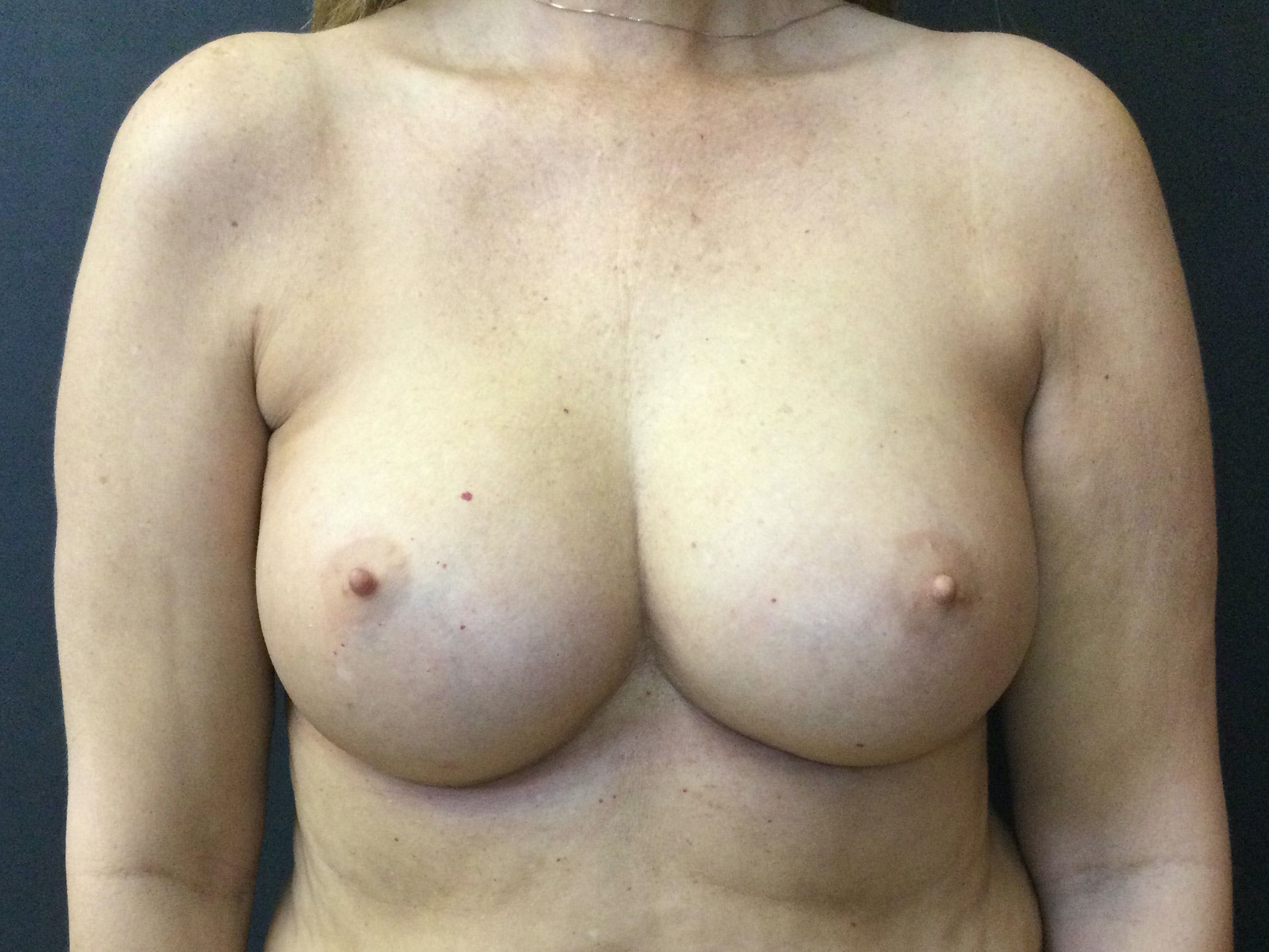 Breast Augmentation Gallery - Patient 56397874 - Image 2