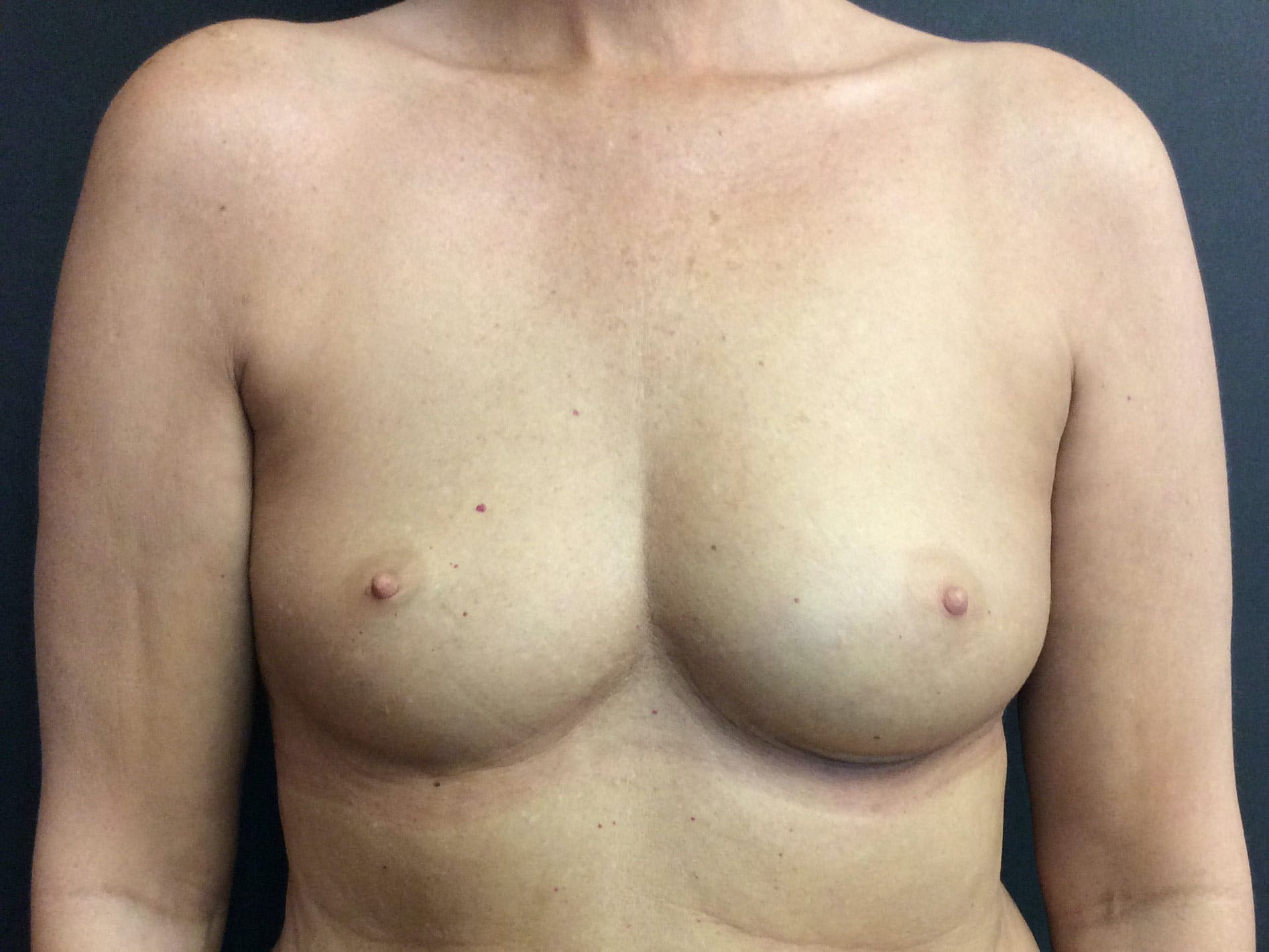 Breast Augmentation Gallery - Patient 56397874 - Image 1