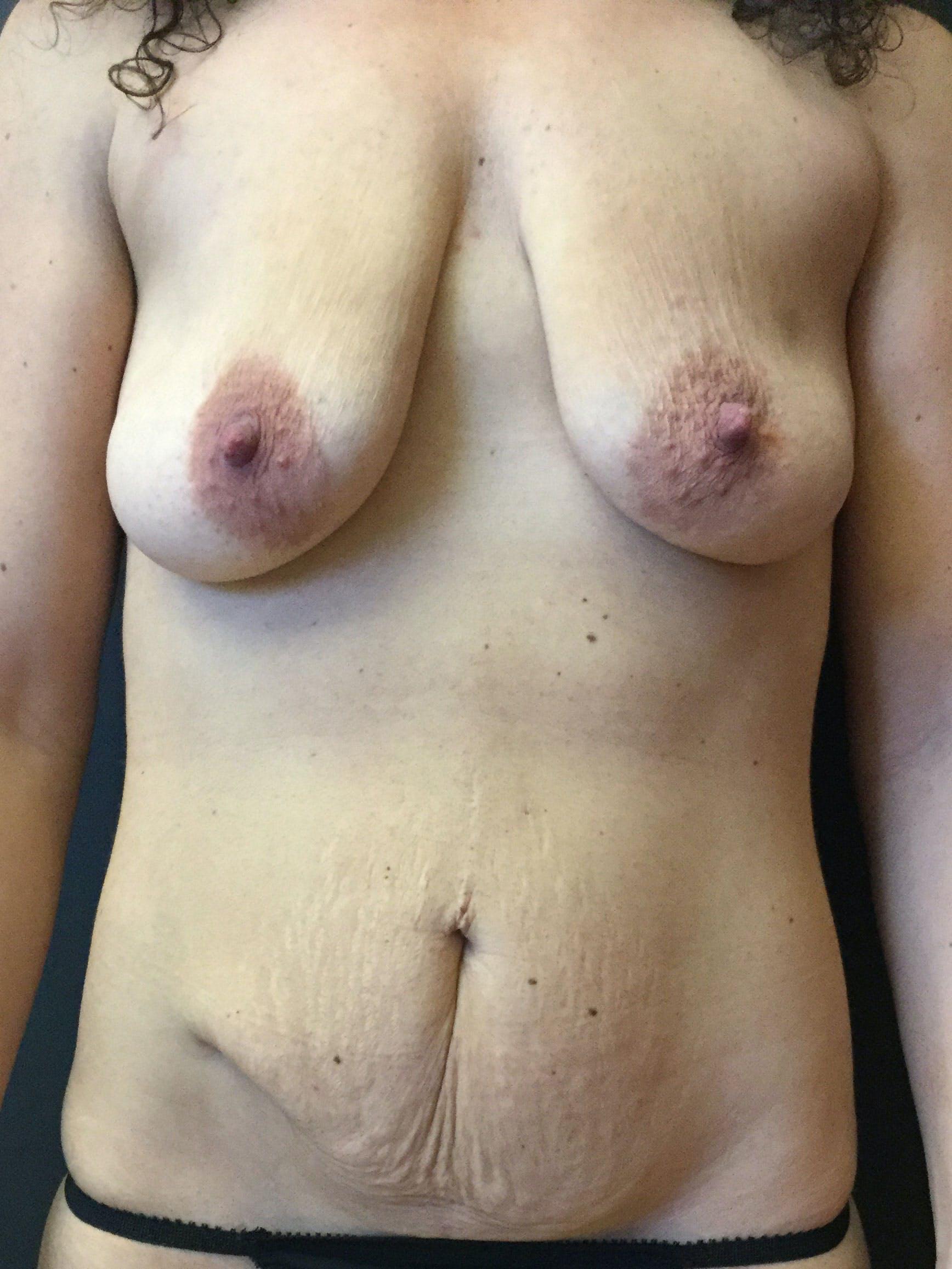 Abdominoplasty Gallery - Patient 56533273 - Image 1
