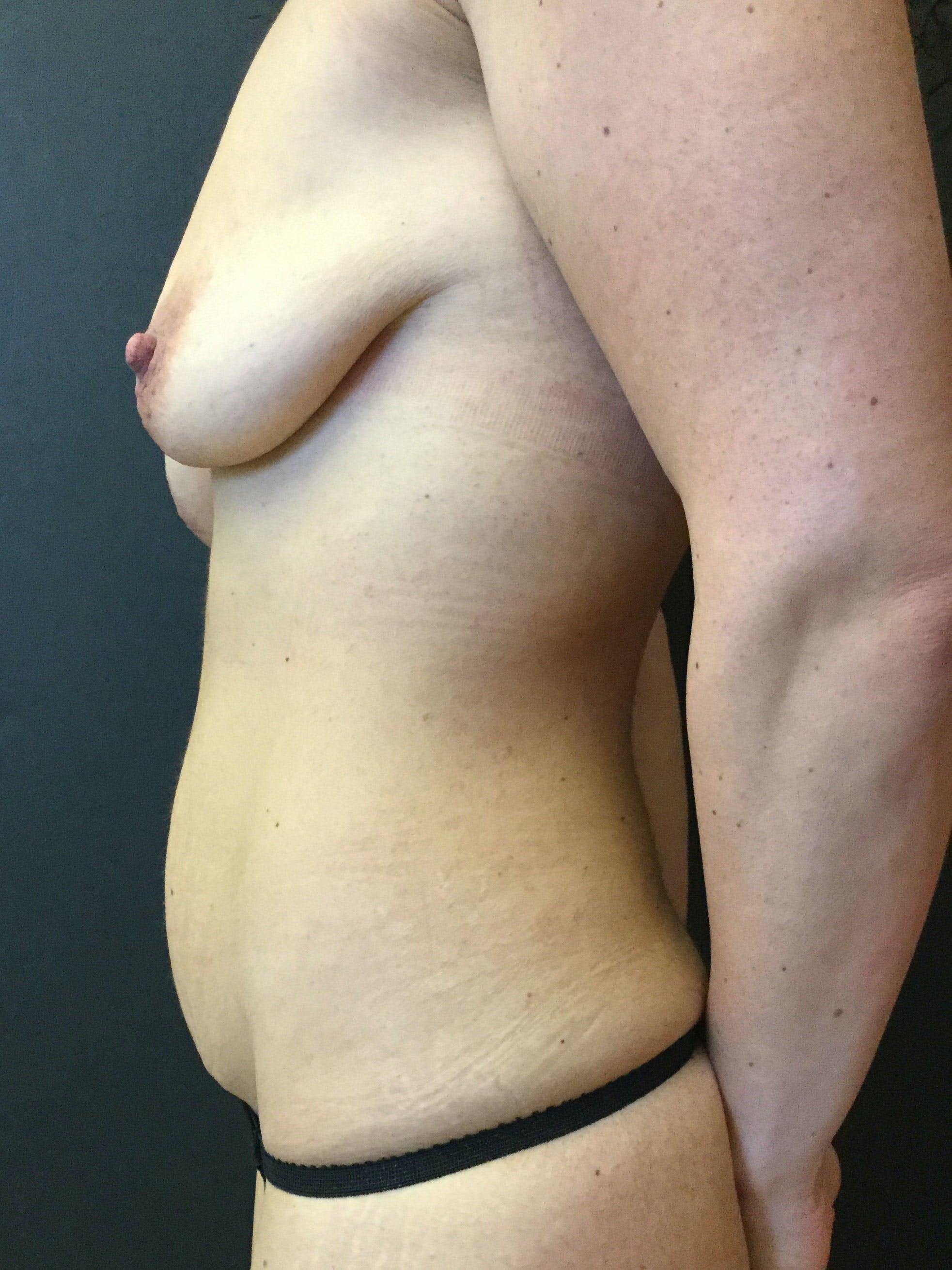Abdominoplasty Gallery - Patient 56533273 - Image 3