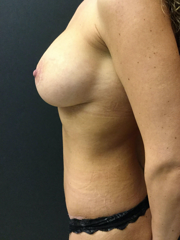 Abdominoplasty Gallery - Patient 56533273 - Image 4