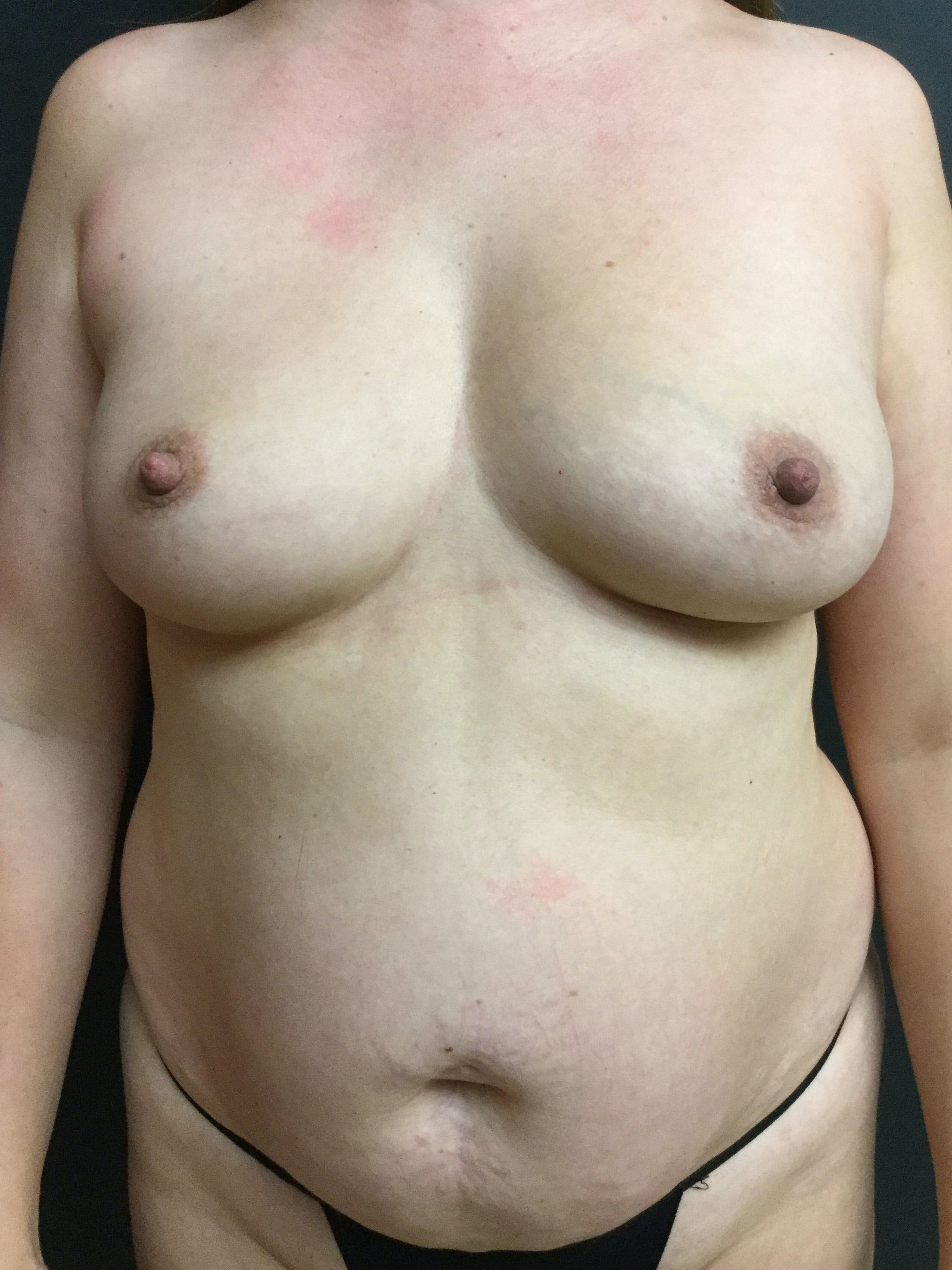 Liposuction Gallery - Patient 56533280 - Image 1