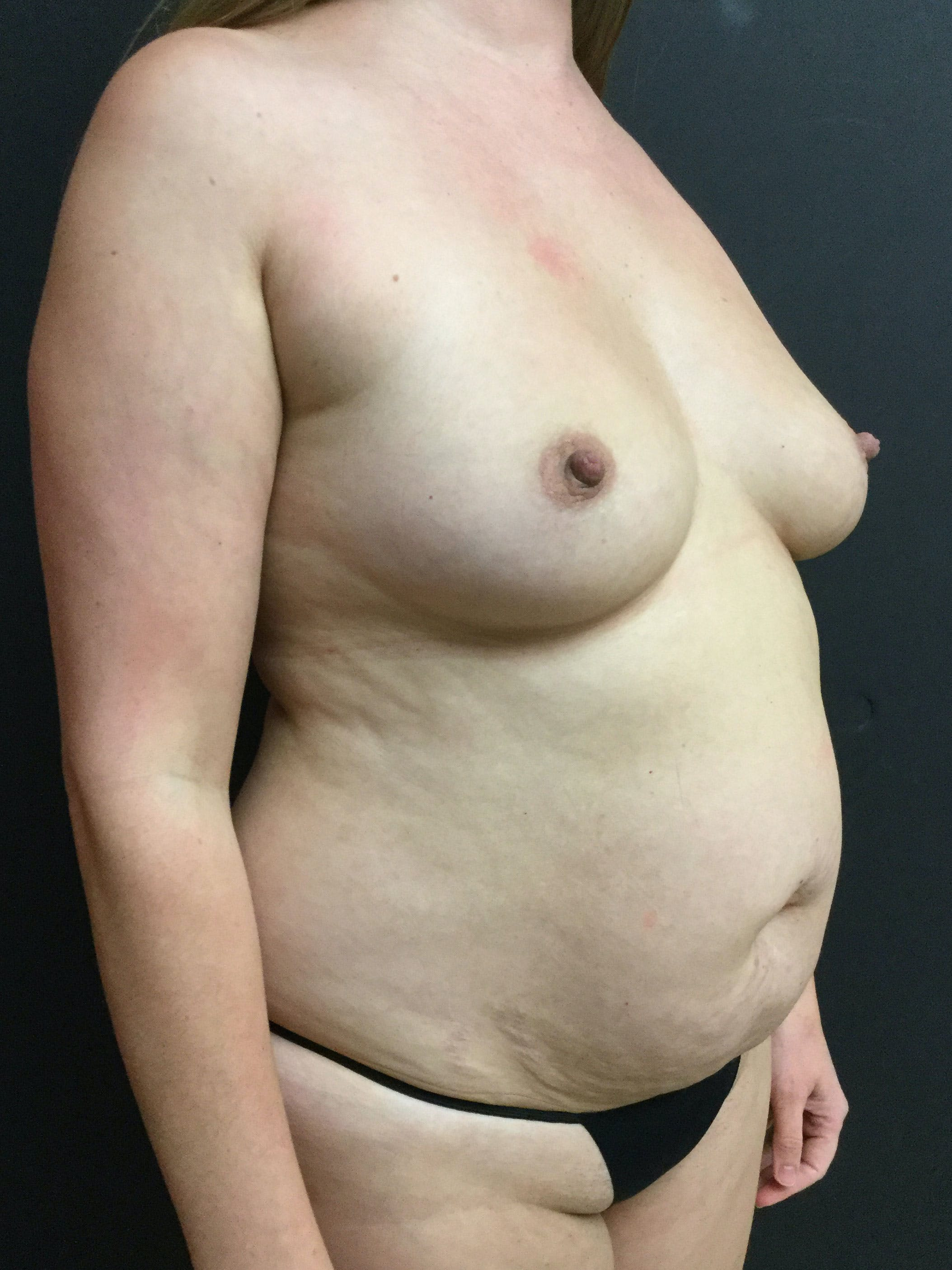 Liposuction Gallery - Patient 56533280 - Image 3