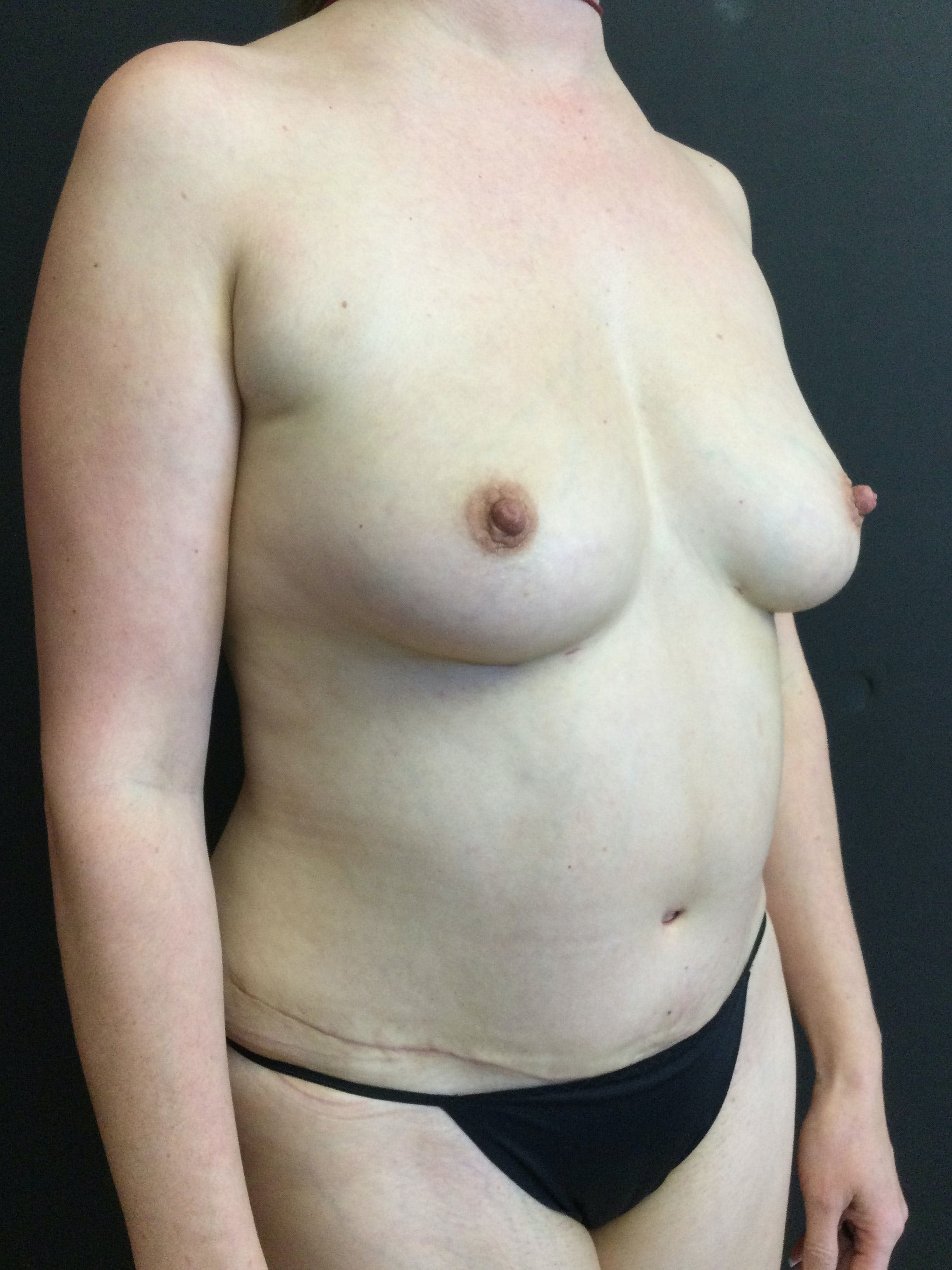 Liposuction Gallery - Patient 56533280 - Image 4