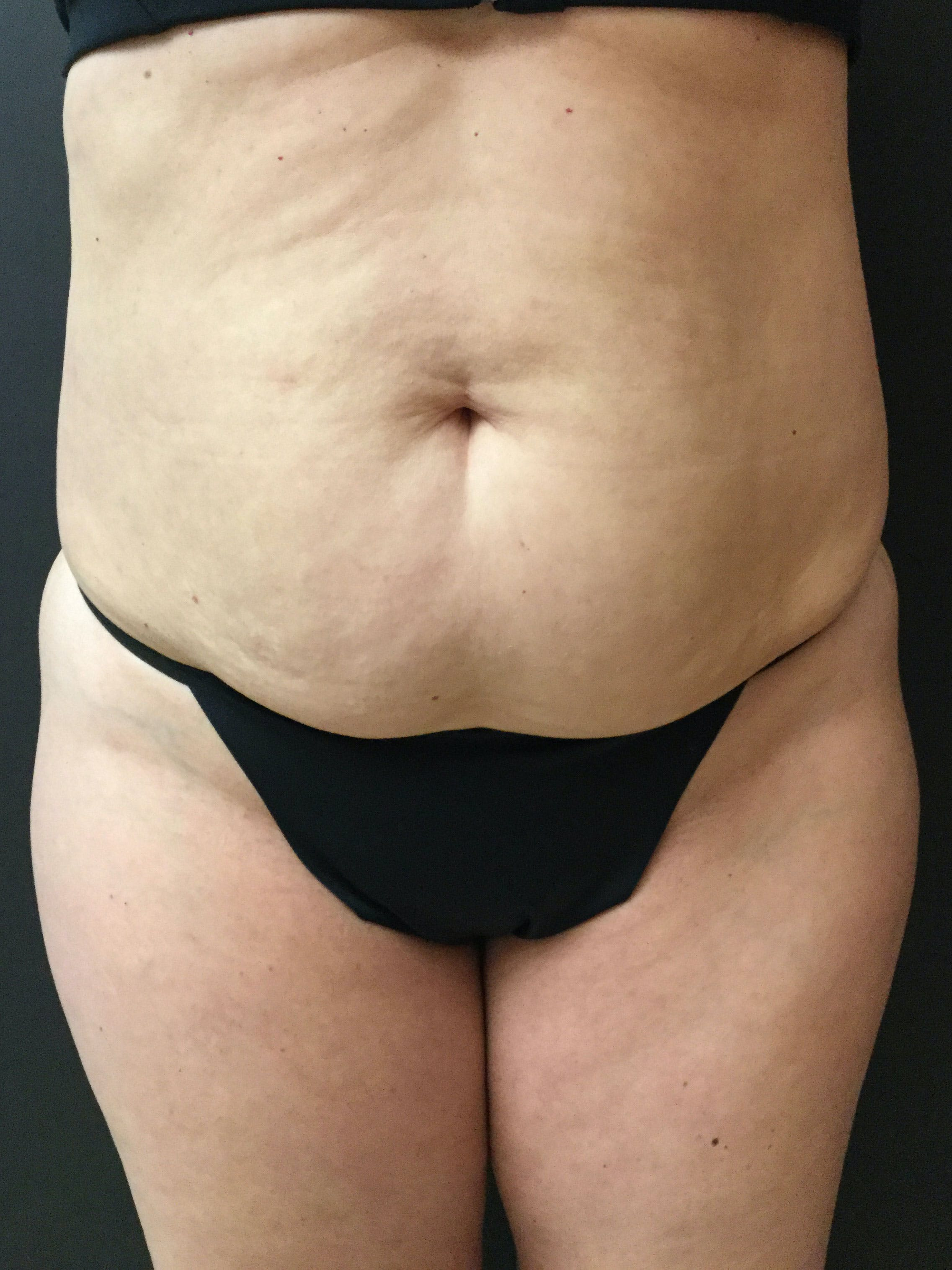 Liposuction Gallery - Patient 56533351 - Image 1