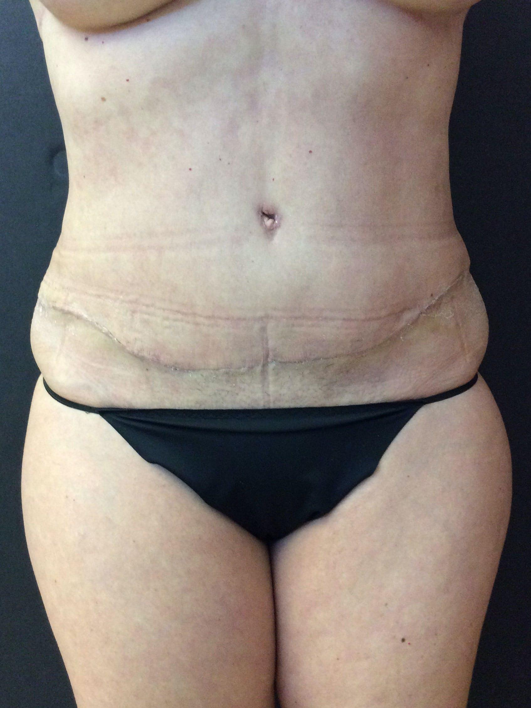 Abdominoplasty Gallery - Patient 56533357 - Image 2