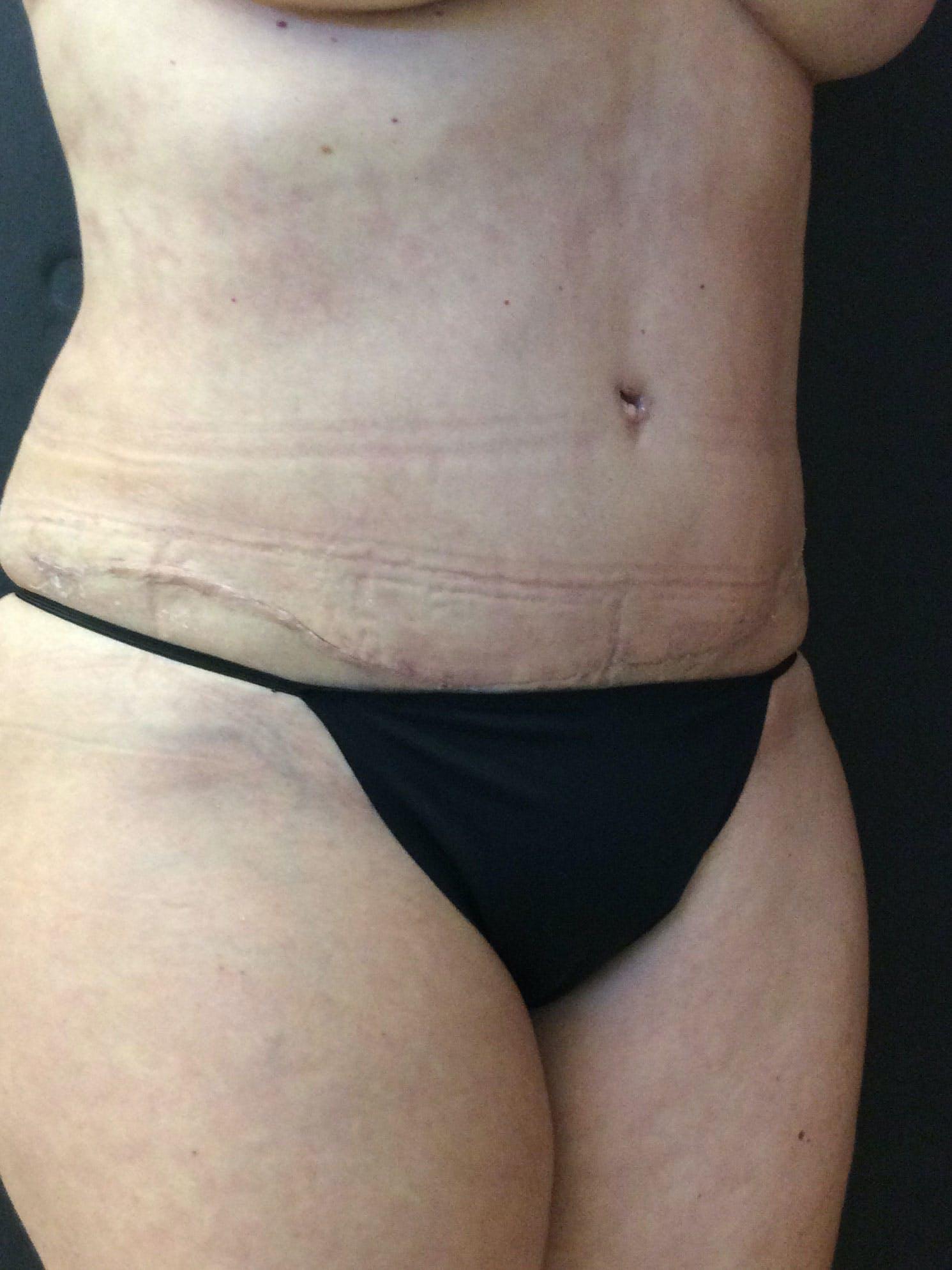 Abdominoplasty Gallery - Patient 56533357 - Image 4