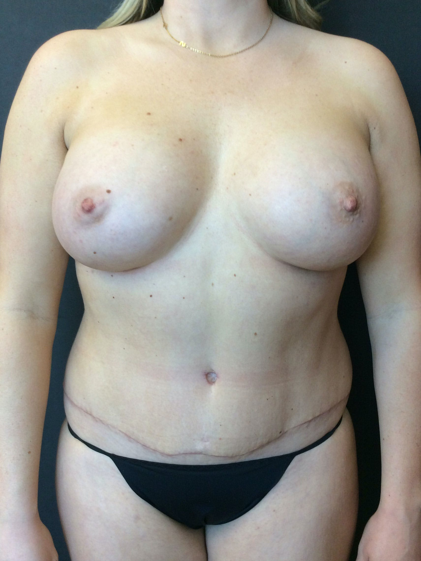 Liposuction Gallery - Patient 56533352 - Image 2
