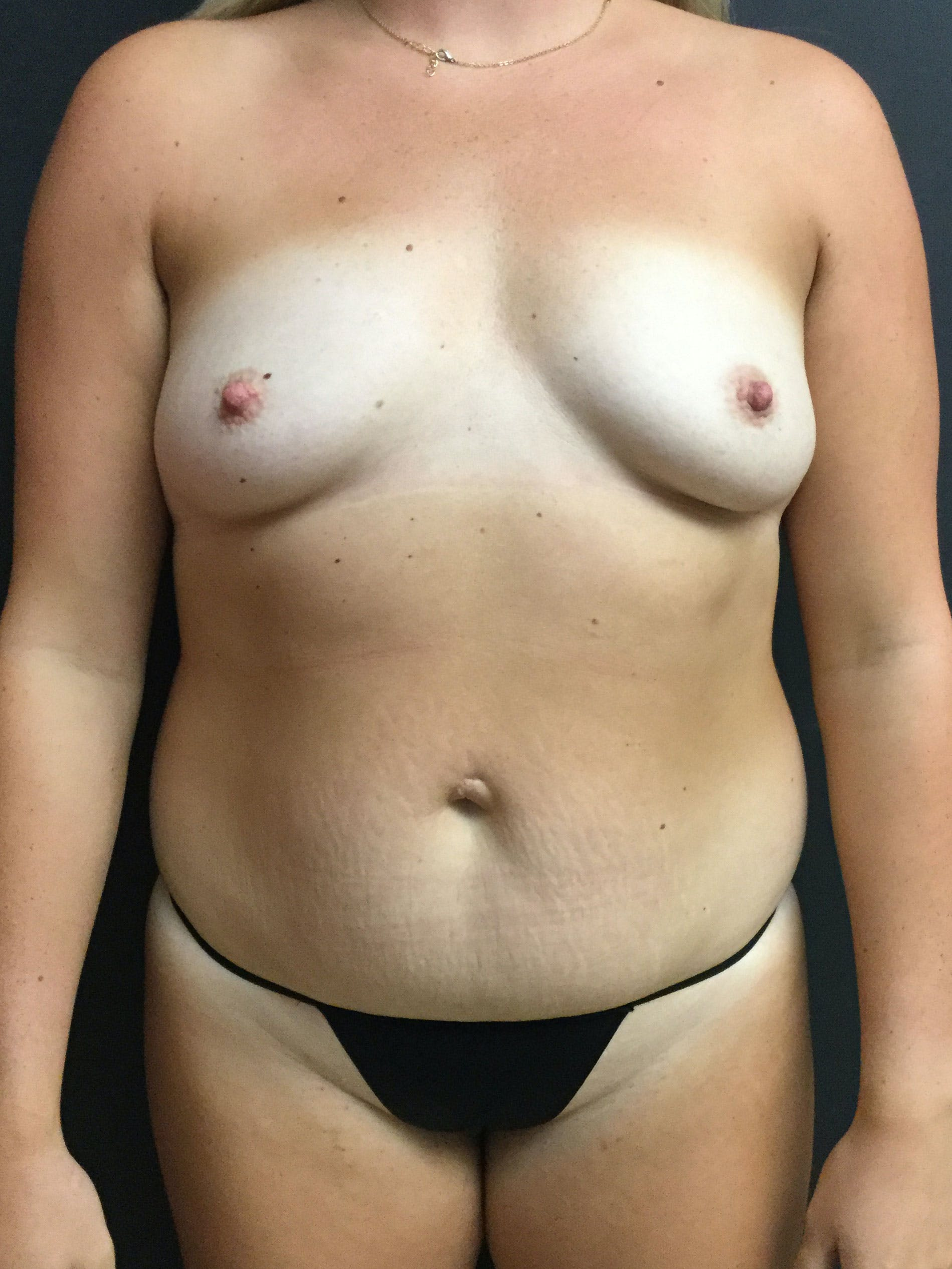 Liposuction Gallery - Patient 56533352 - Image 1
