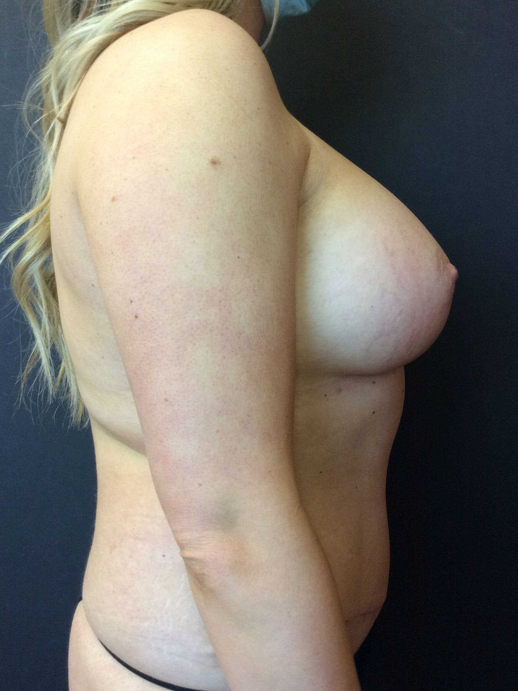 Liposuction Gallery - Patient 56533352 - Image 4
