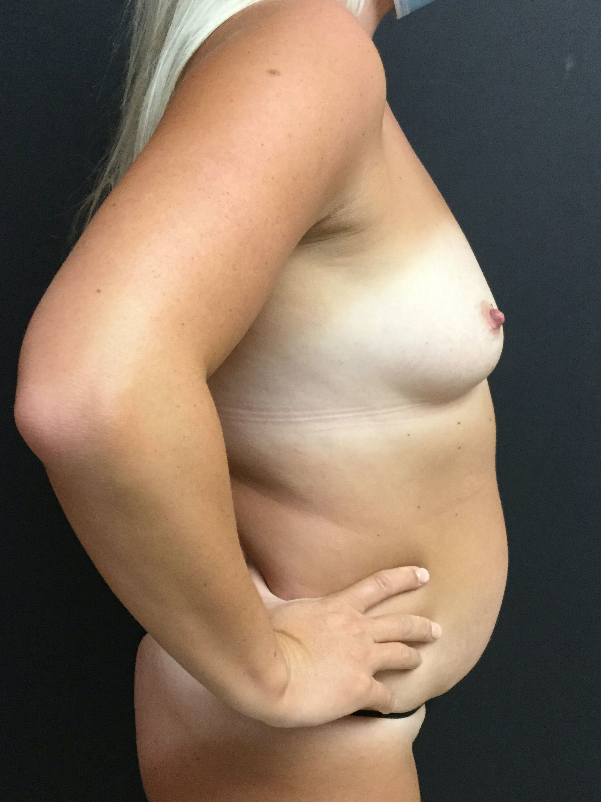Liposuction Gallery - Patient 56533352 - Image 3
