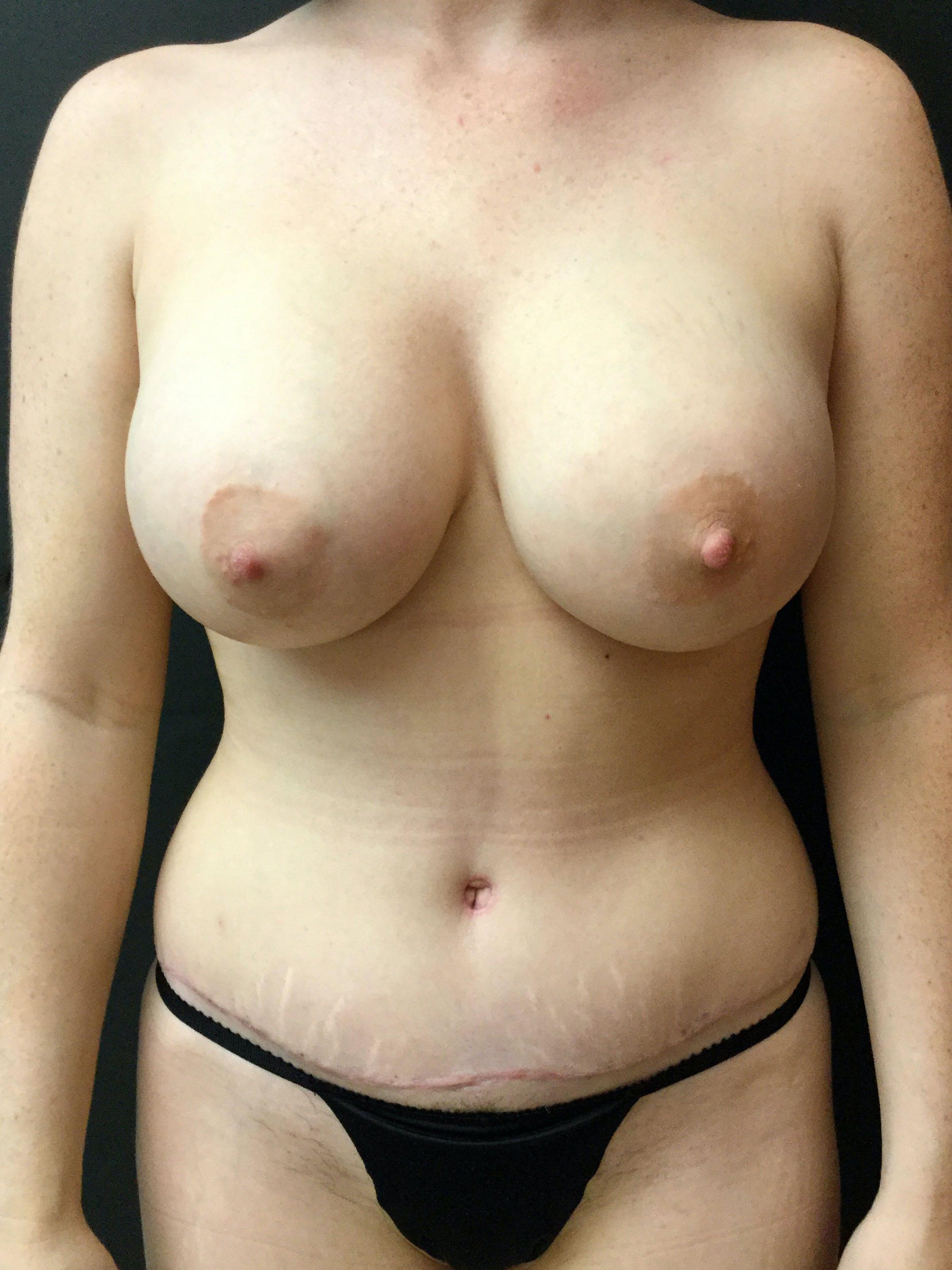 Abdominoplasty Gallery - Patient 56533416 - Image 2