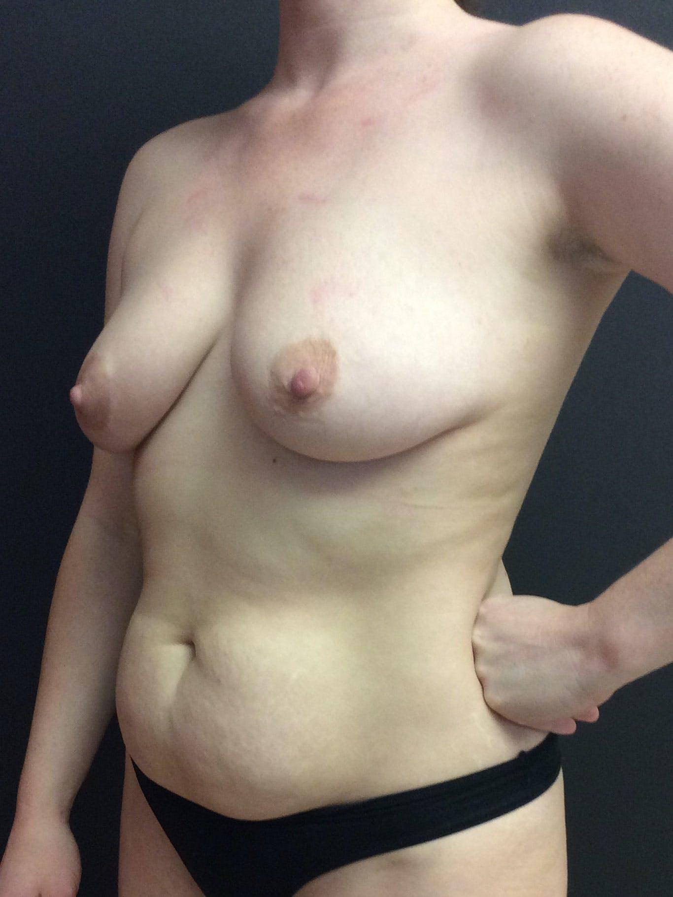 Abdominoplasty Gallery - Patient 56533416 - Image 3