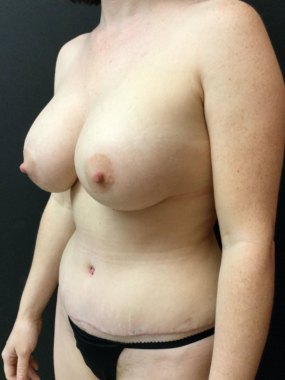 Abdominoplasty Gallery - Patient 56533416 - Image 4