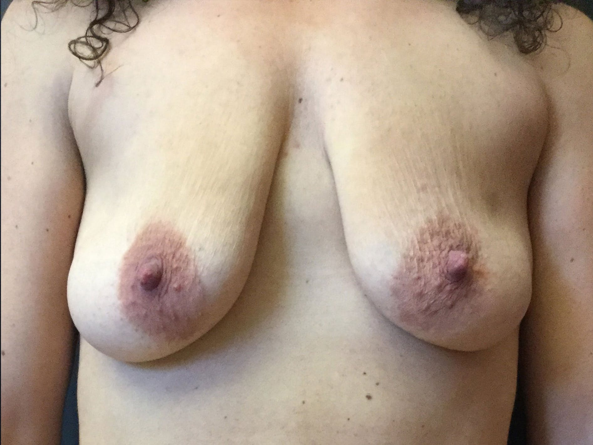 Breast Augmentation Gallery - Patient 56533584 - Image 1