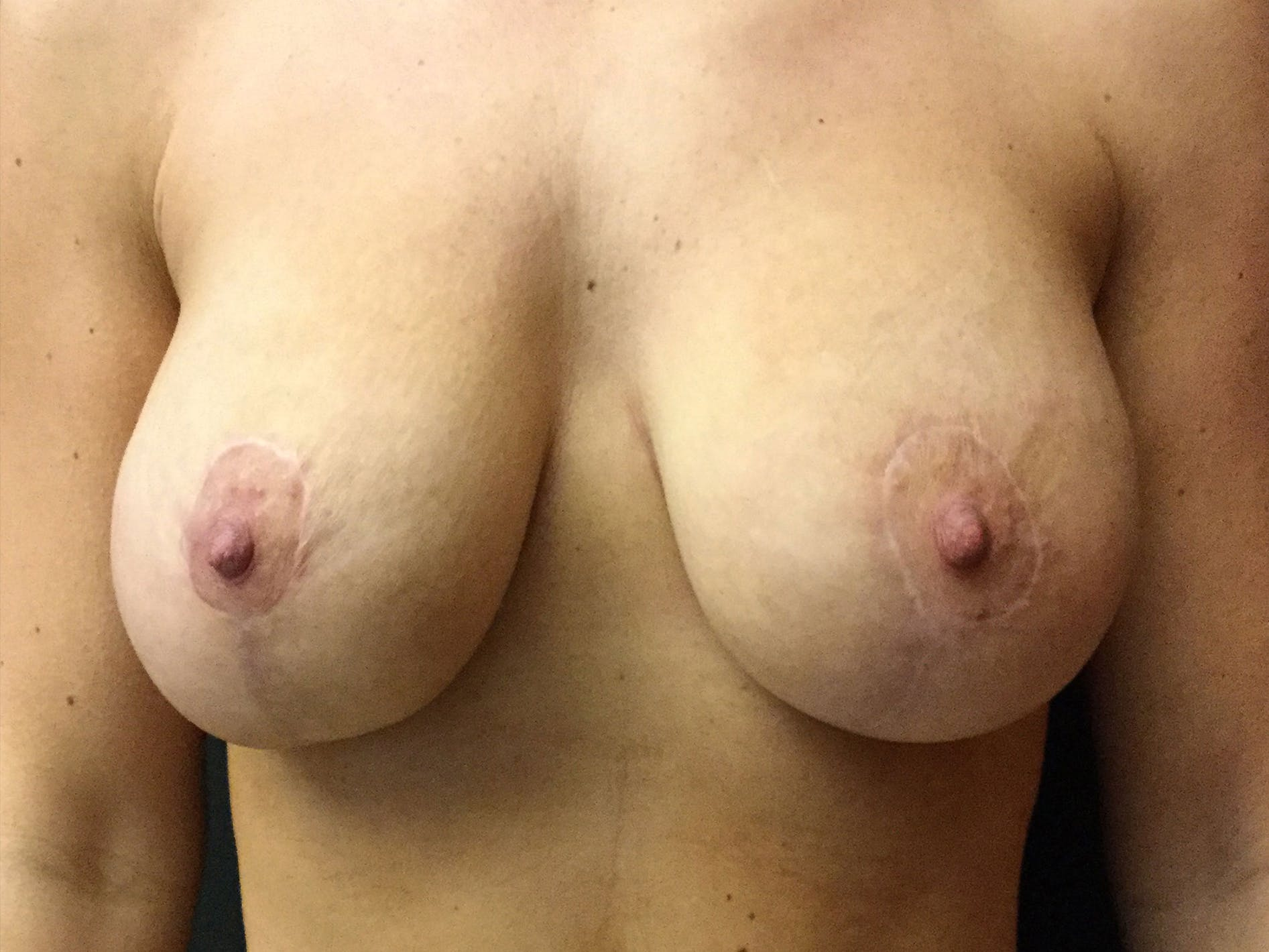 Breast Lift Gallery - Patient 56533585 - Image 2