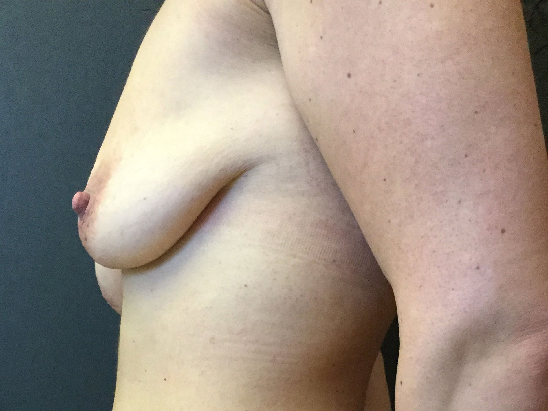 Breast Lift Gallery - Patient 56533585 - Image 3