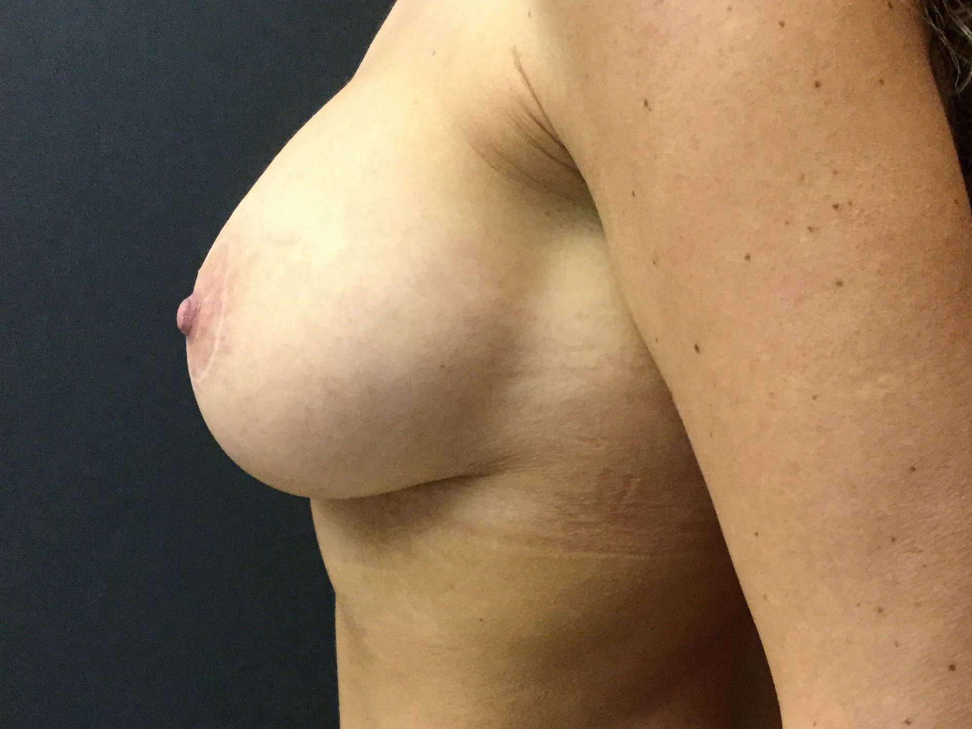 Breast Lift Gallery - Patient 56533585 - Image 4
