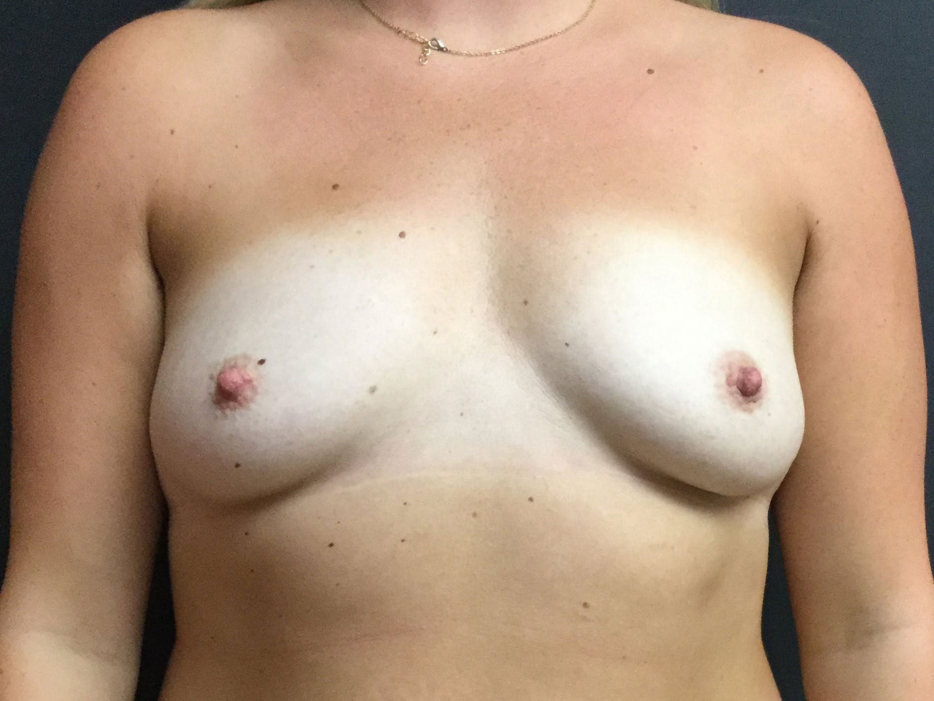 Breast Augmentation Gallery - Patient 56533654 - Image 1