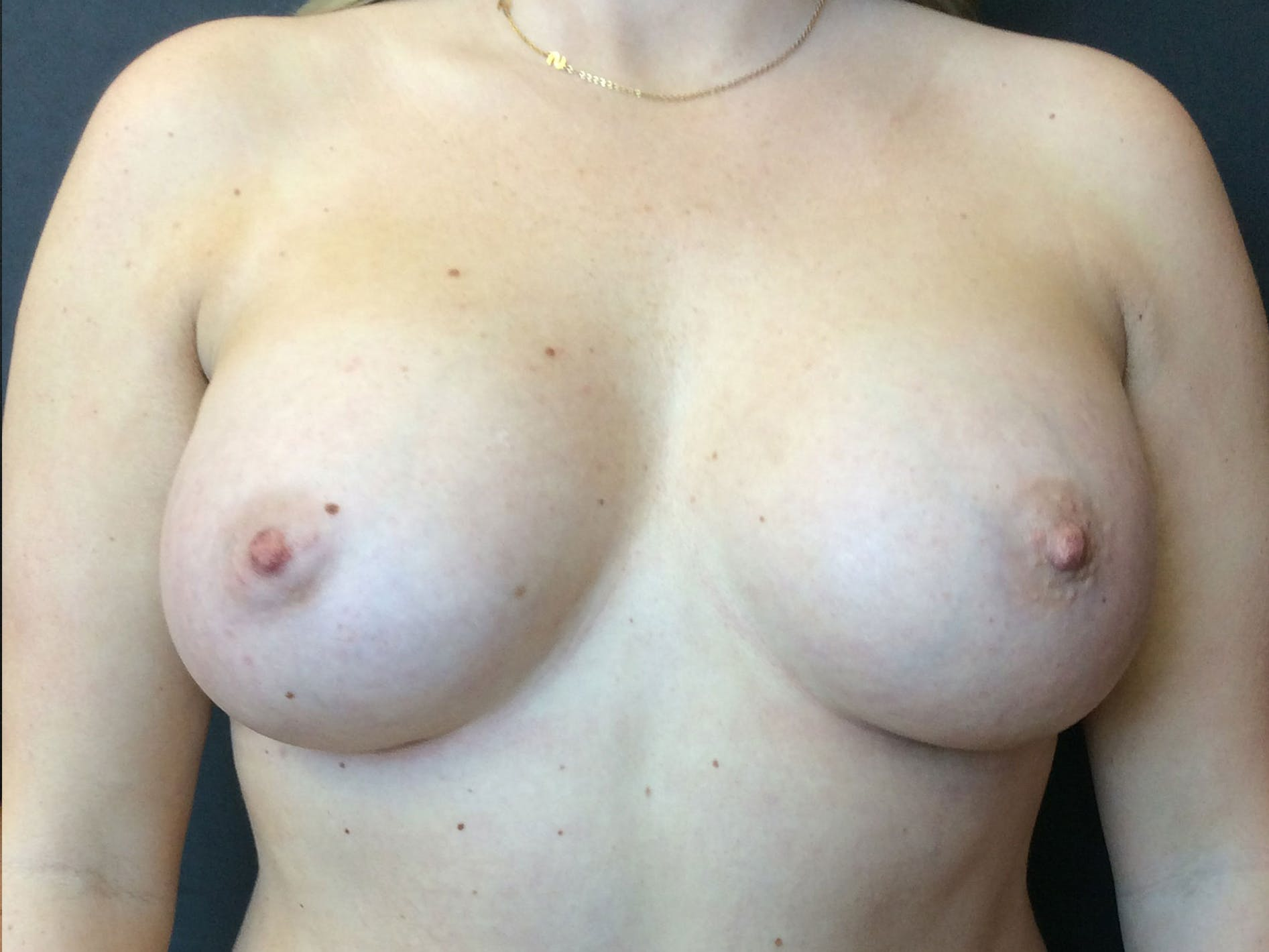 Breast Augmentation Gallery - Patient 56533654 - Image 2