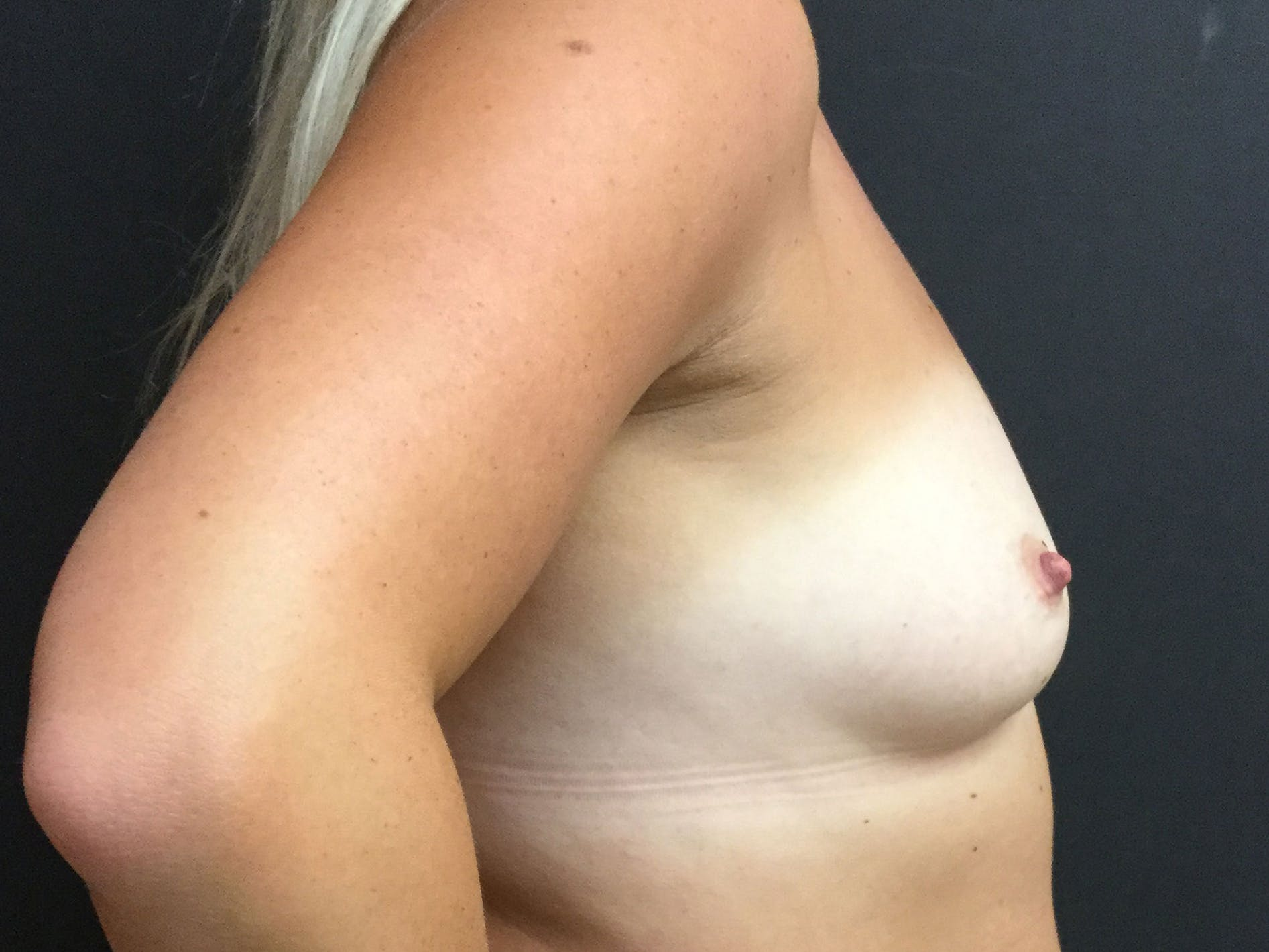 Breast Augmentation Gallery - Patient 56533654 - Image 3