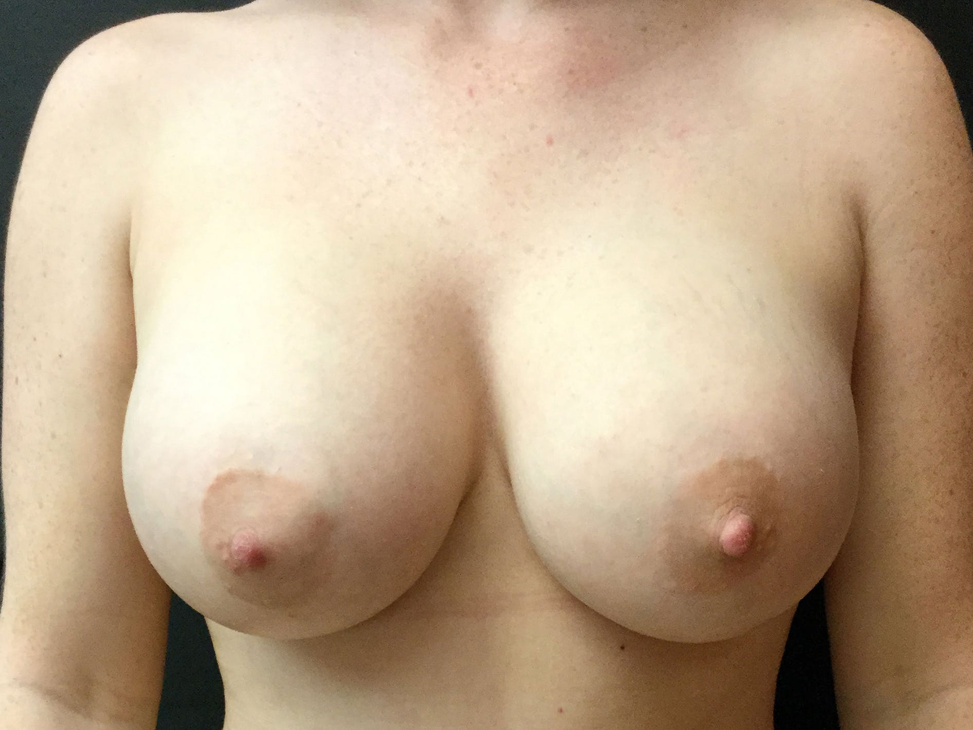 Breast Augmentation Gallery - Patient 56533655 - Image 2