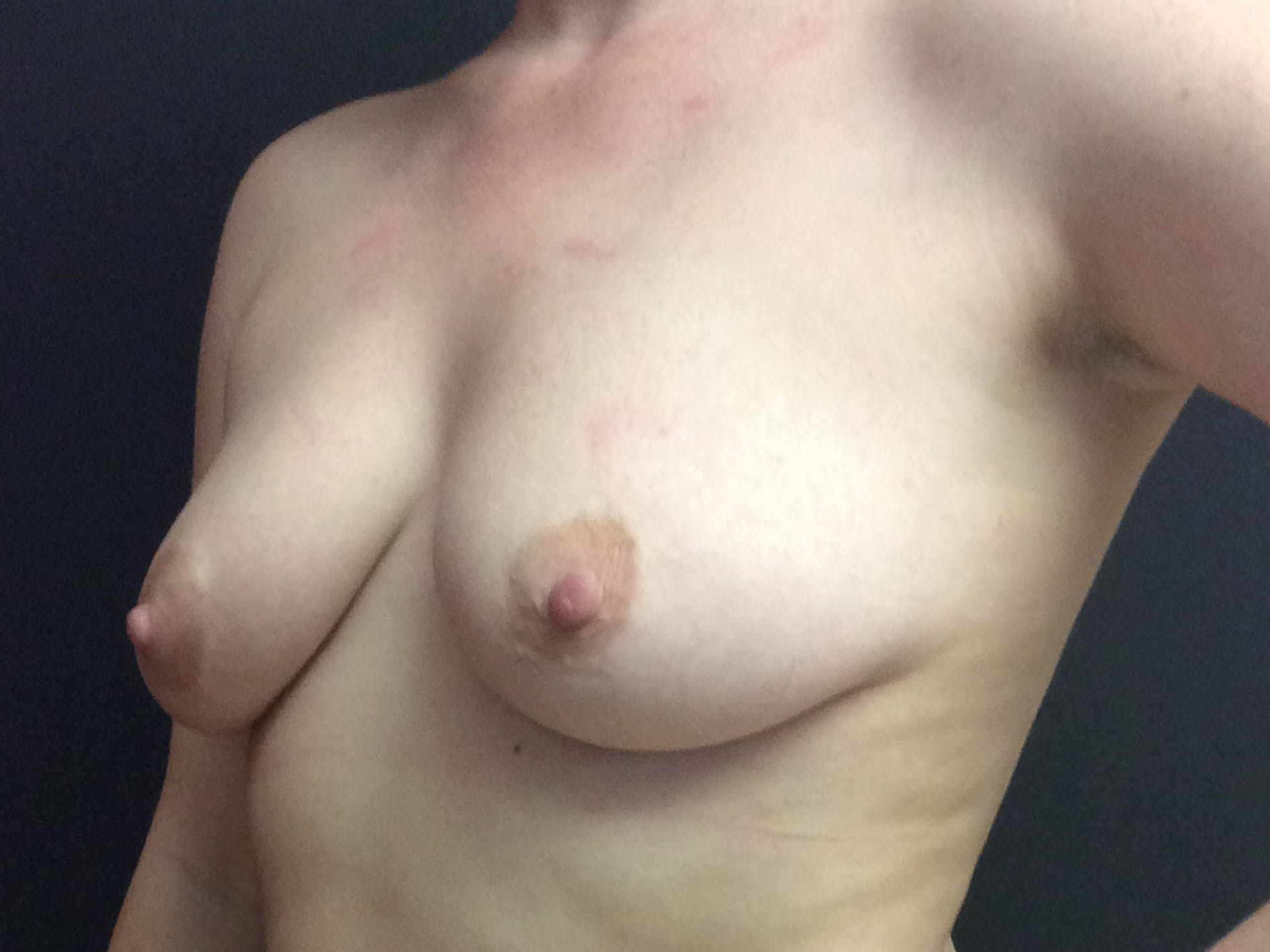 Breast Augmentation Gallery - Patient 56533655 - Image 3