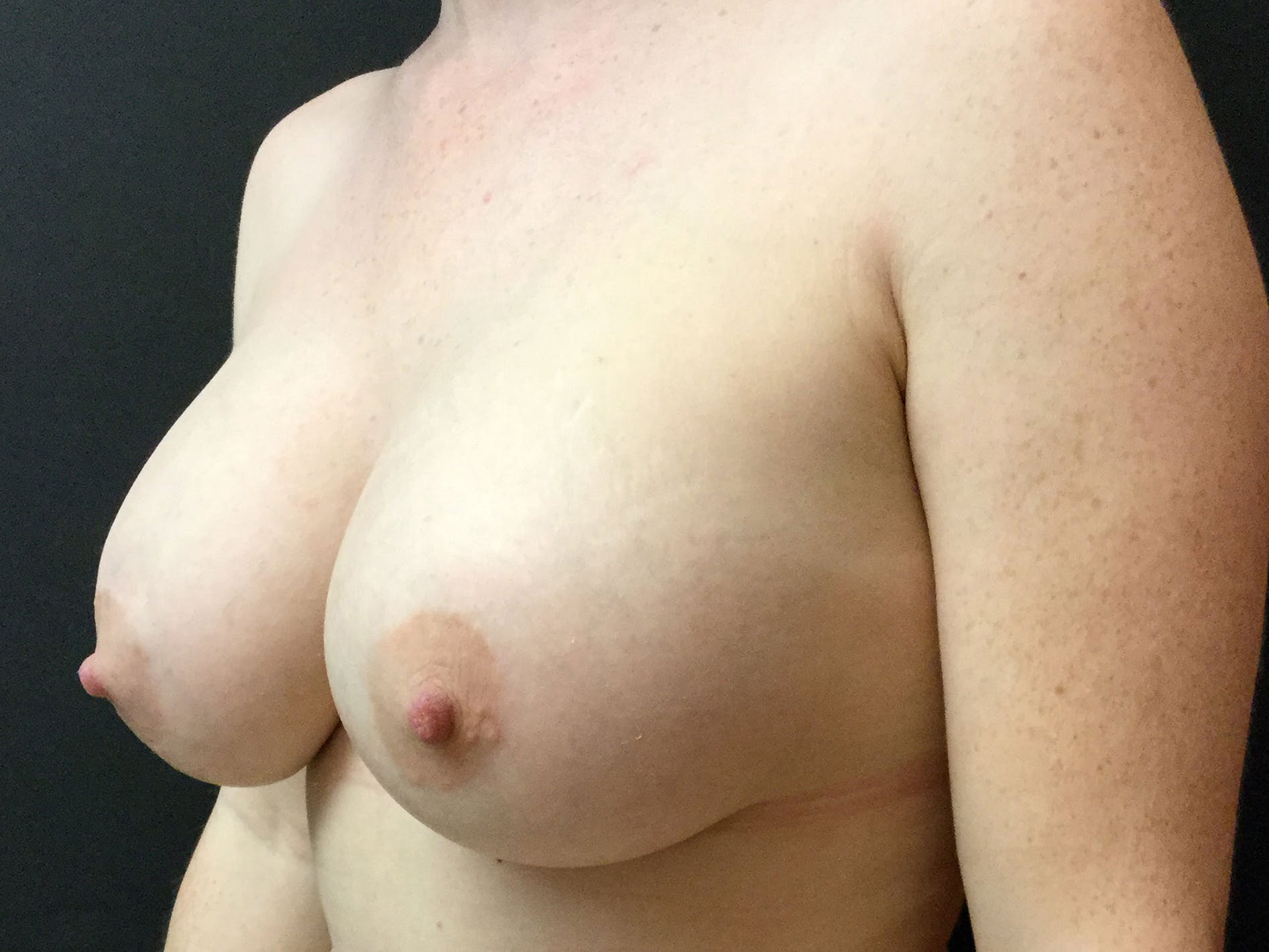 Breast Augmentation Gallery - Patient 56533655 - Image 4