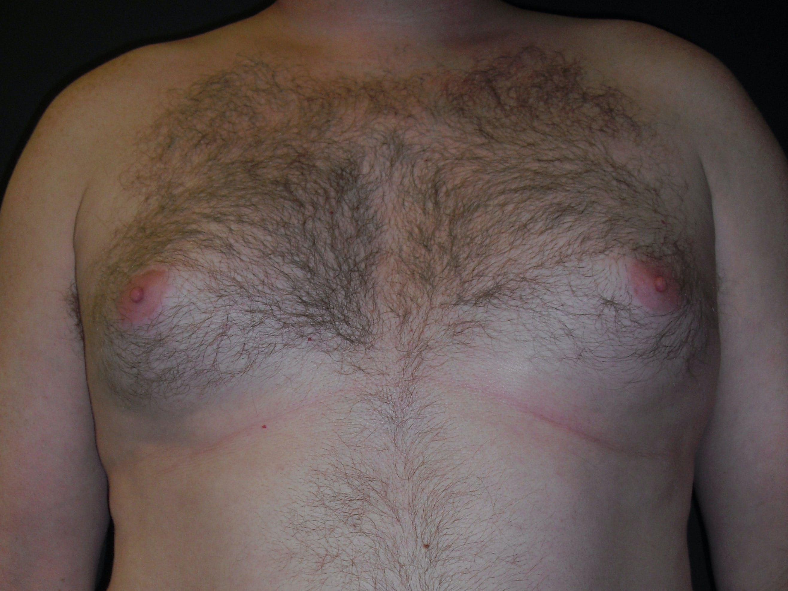 Gynecomastia Gallery - Patient 60810583 - Image 1
