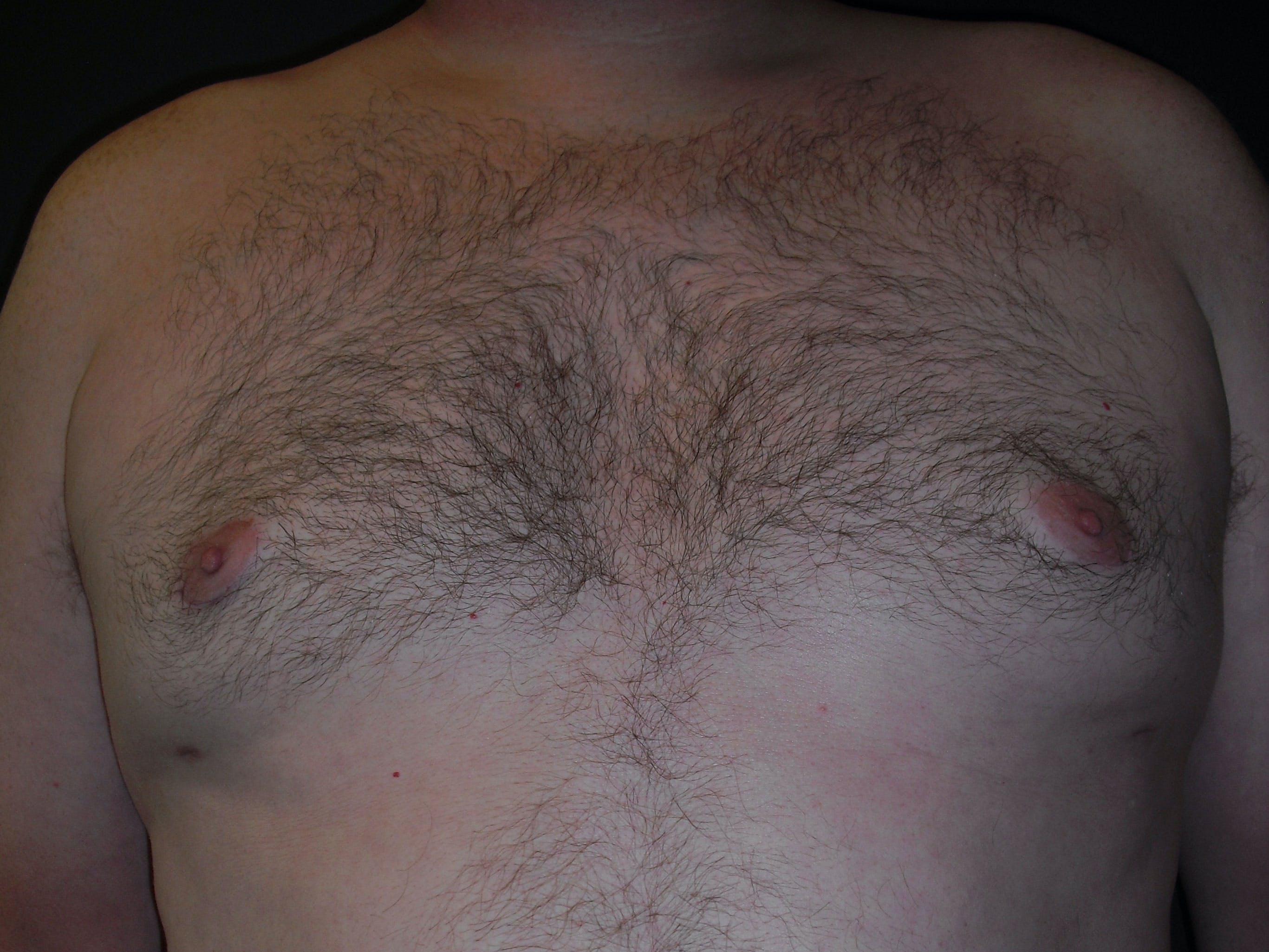 Gynecomastia Gallery - Patient 60810583 - Image 2