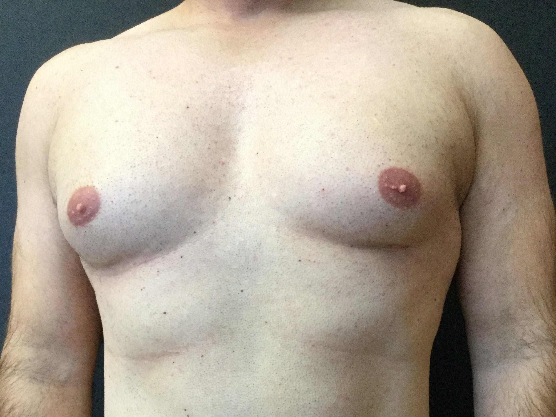 Gynecomastia Gallery - Patient 60810584 - Image 1