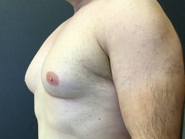 Gynecomastia Gallery - Patient 60810584 - Image 3